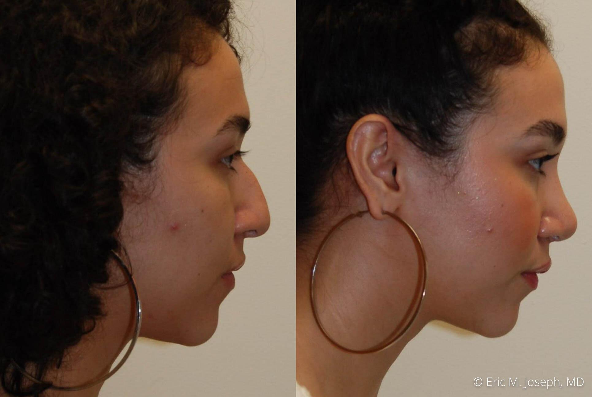 rhinoplasty-nose-job-nj-0494.jpg