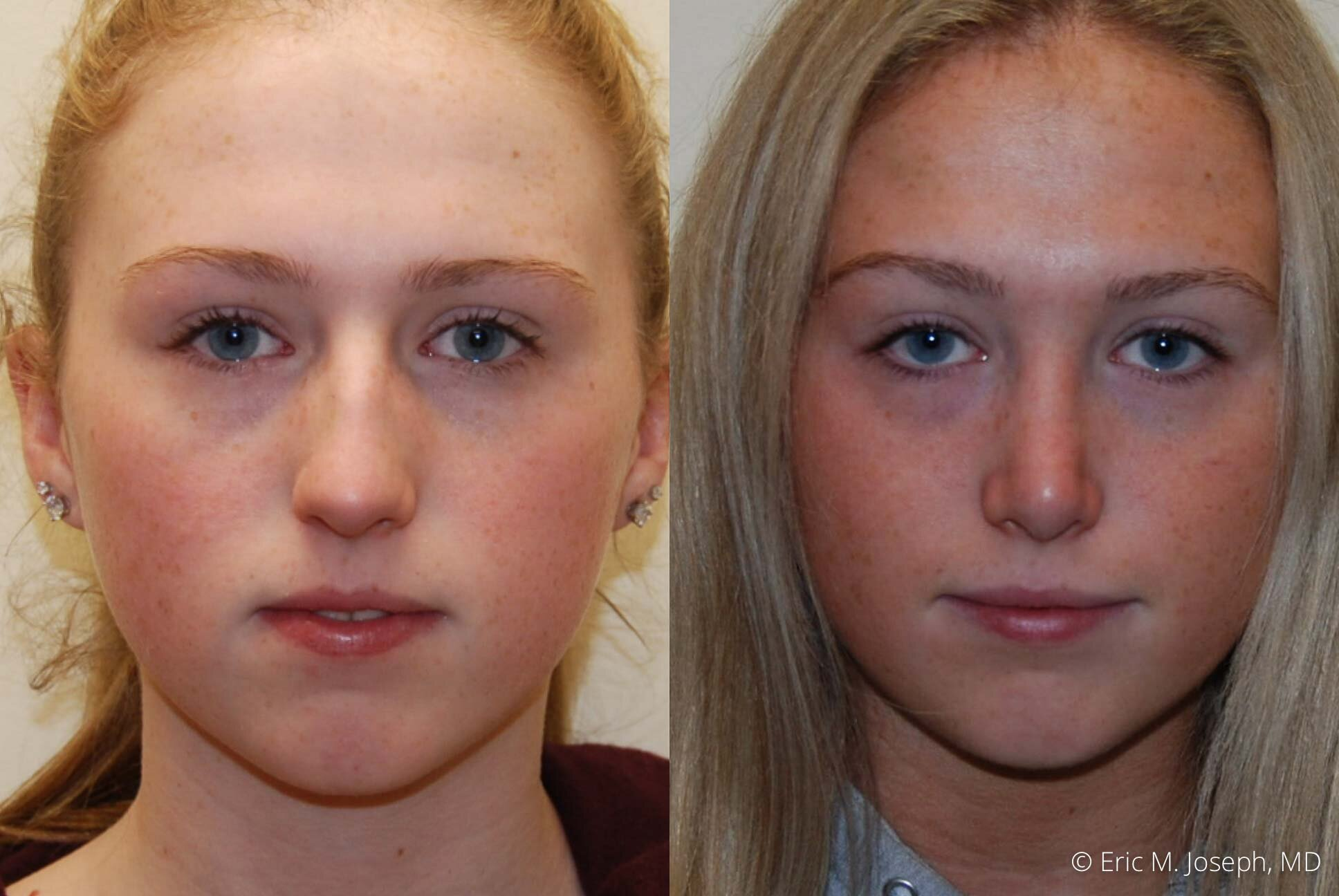 rhinoplasty-nose-job-nj-0495.jpg