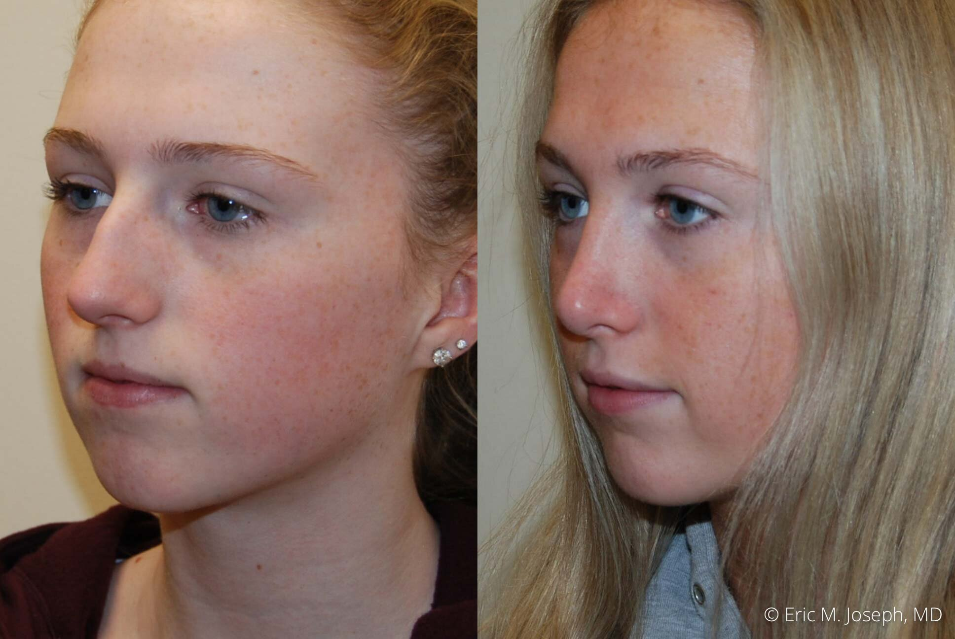 rhinoplasty-nose-job-nj-0497.jpg