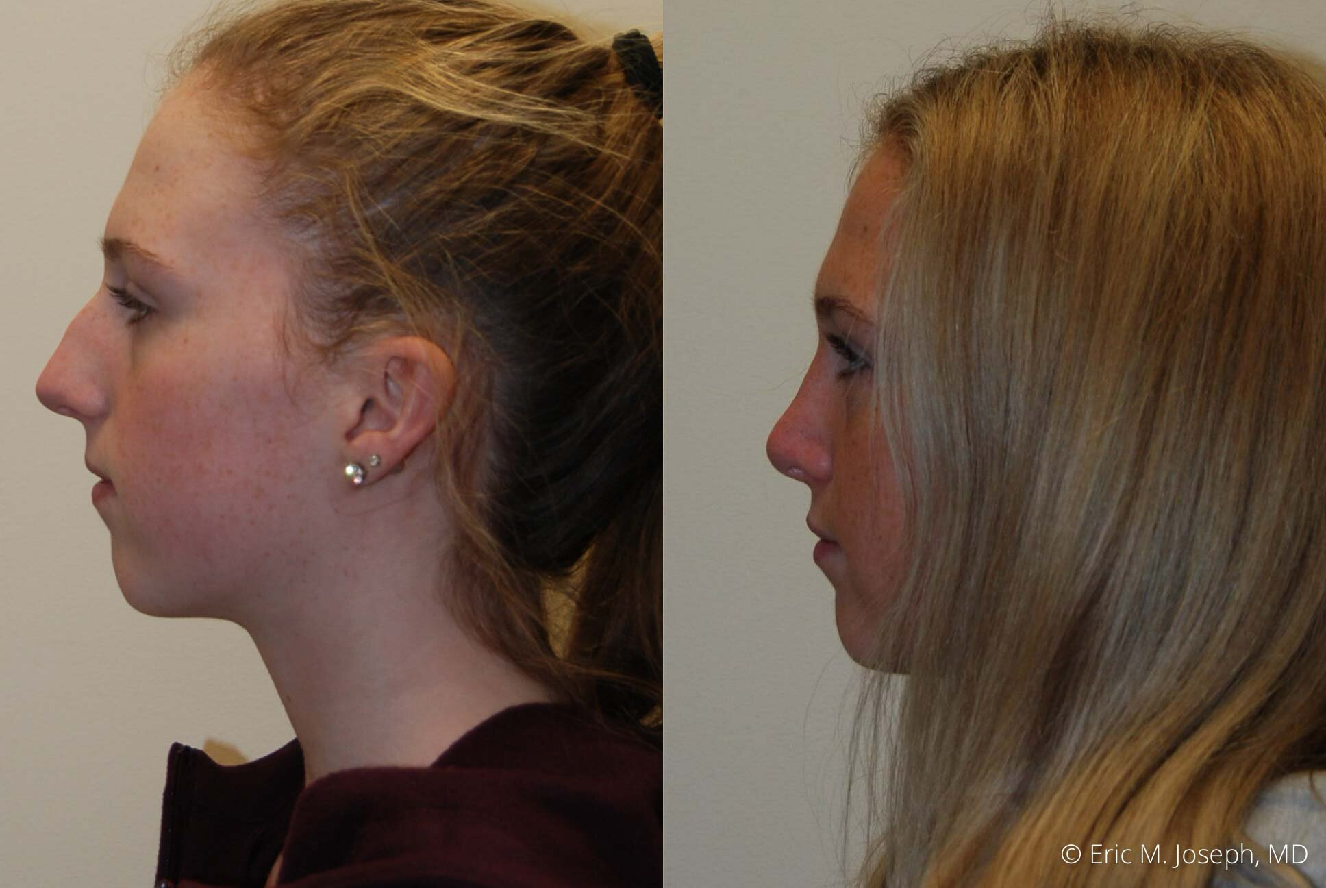 rhinoplasty-nose-job-nj-0498.jpg