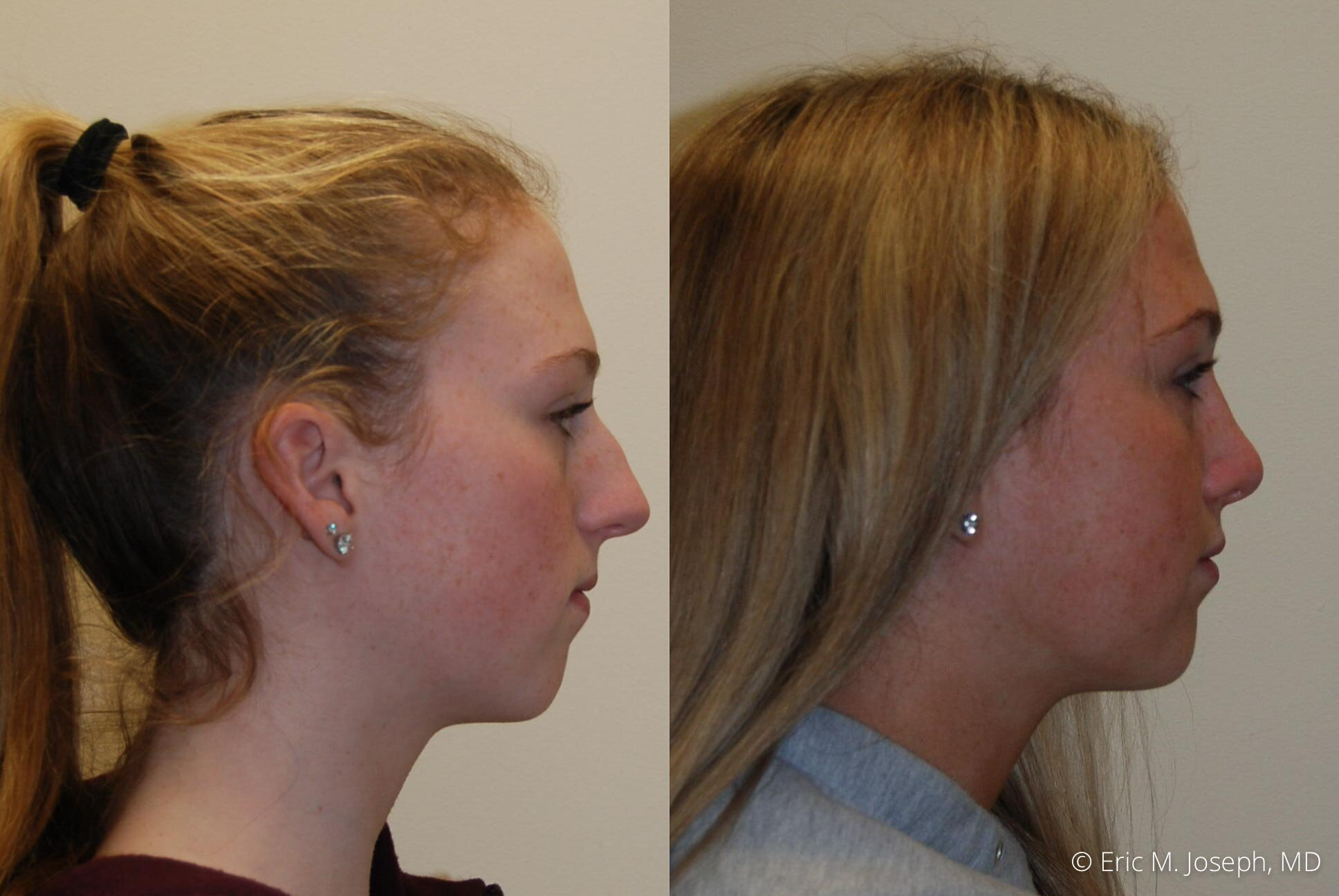 rhinoplasty-nose-job-nj-0499.jpg