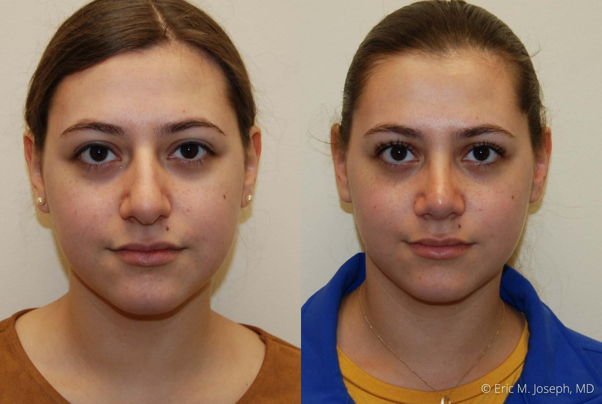 nose-job-rhinoplasty-nj-nyc-0460.jpg