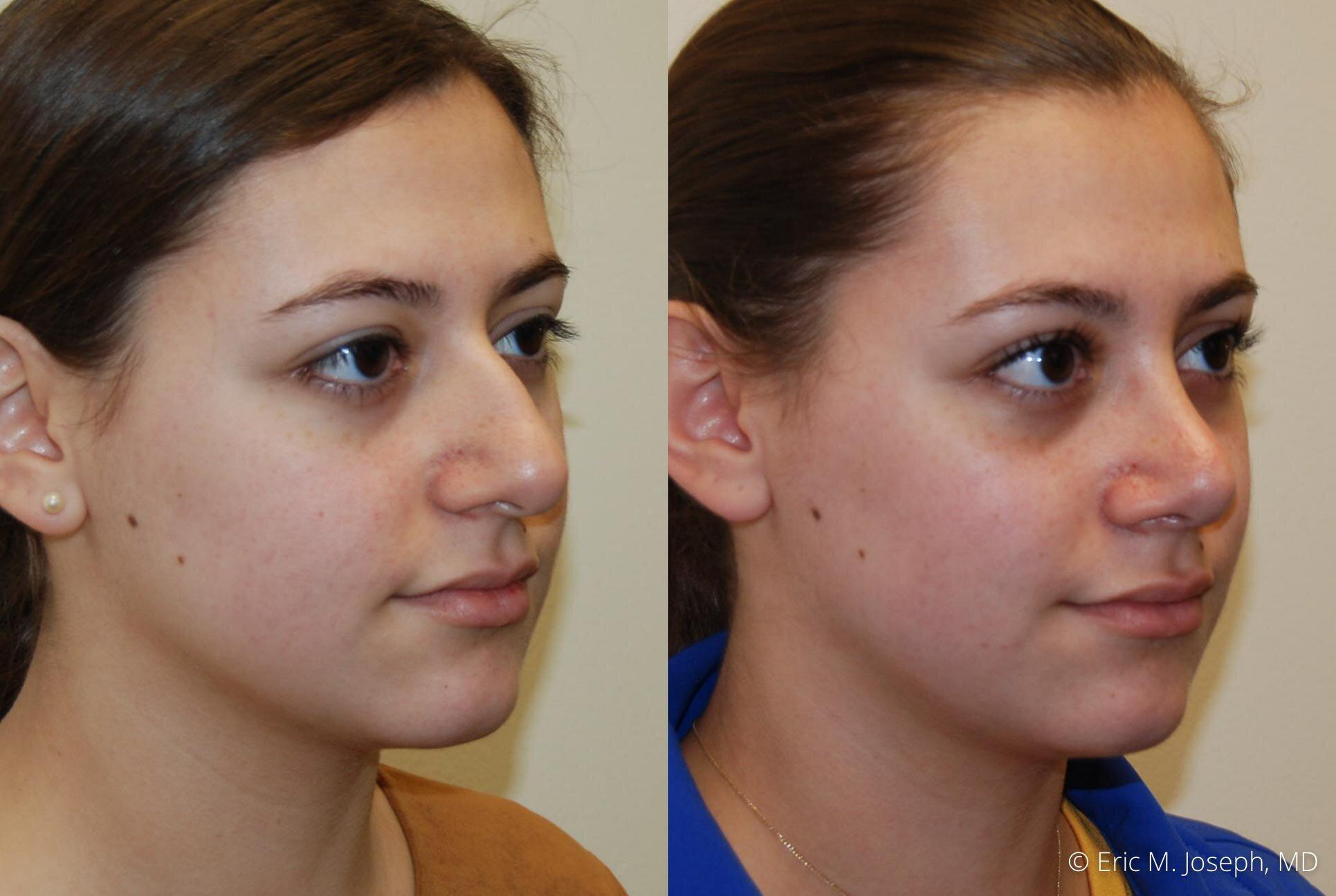 nose-job-rhinoplasty-nj-nyc-0461.jpg