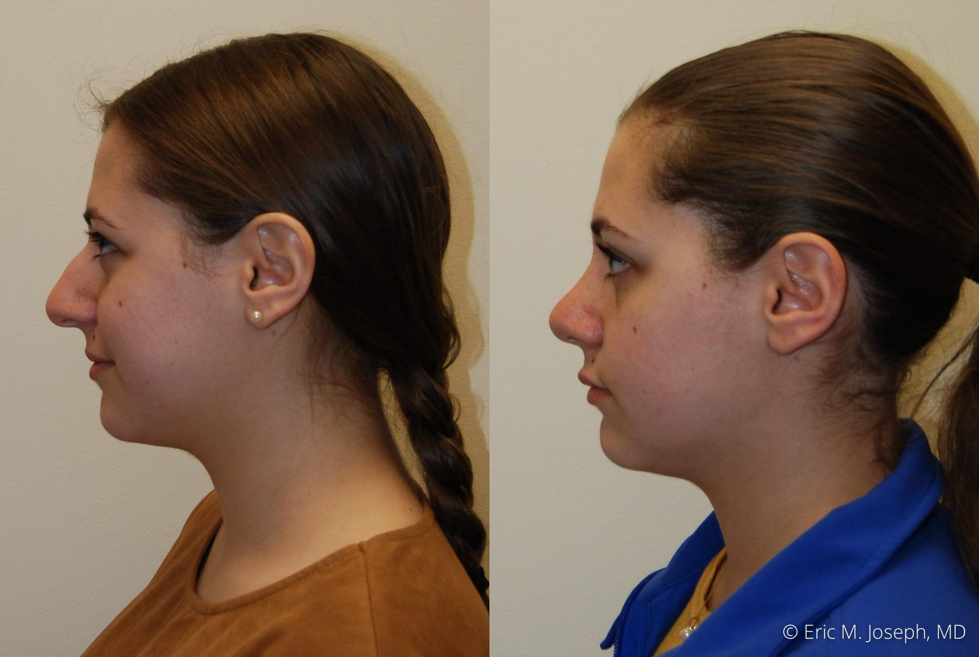 nose-job-rhinoplasty-nj-nyc-0463.jpg