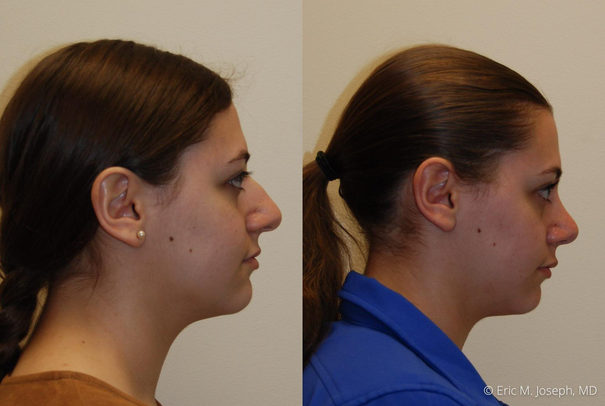 nose-job-rhinoplasty-nj-nyc-0464.jpg