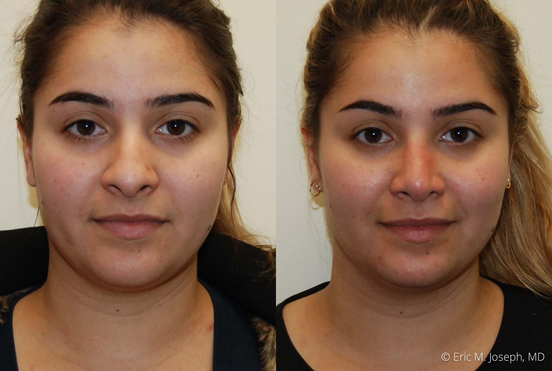 rhinoplasty-nose-job-nyc-nj-0475.jpg