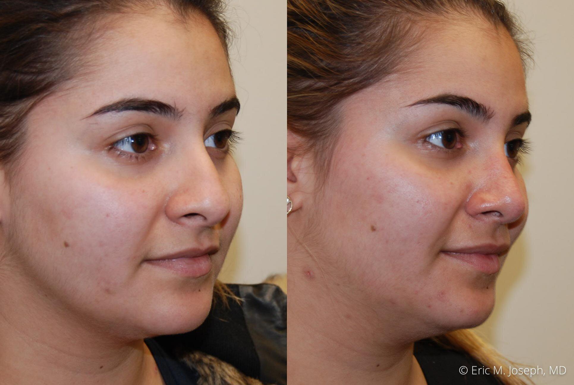 rhinoplasty-nose-job-nyc-nj-0476.jpg