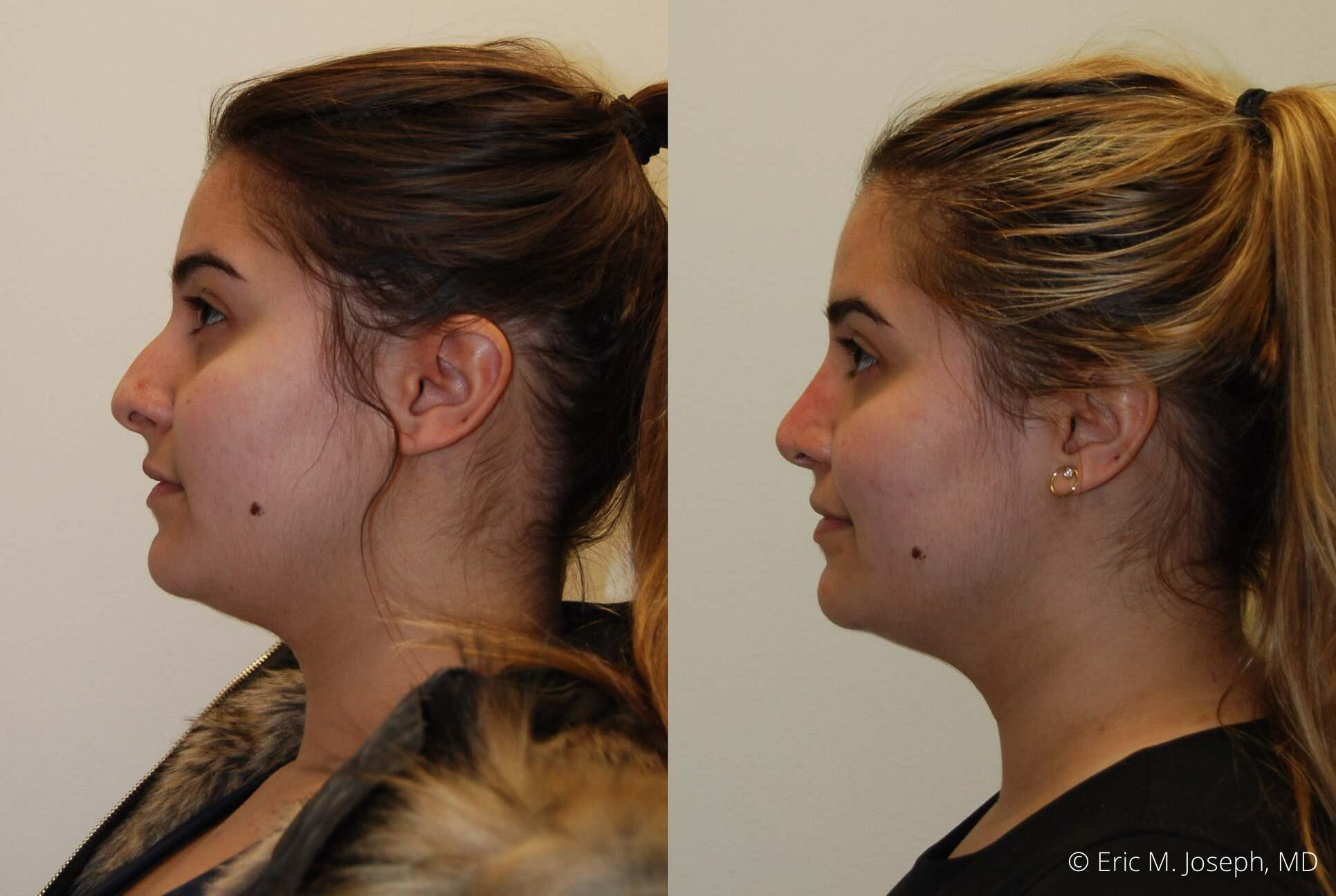 rhinoplasty-nose-job-nyc-nj-0477.jpg