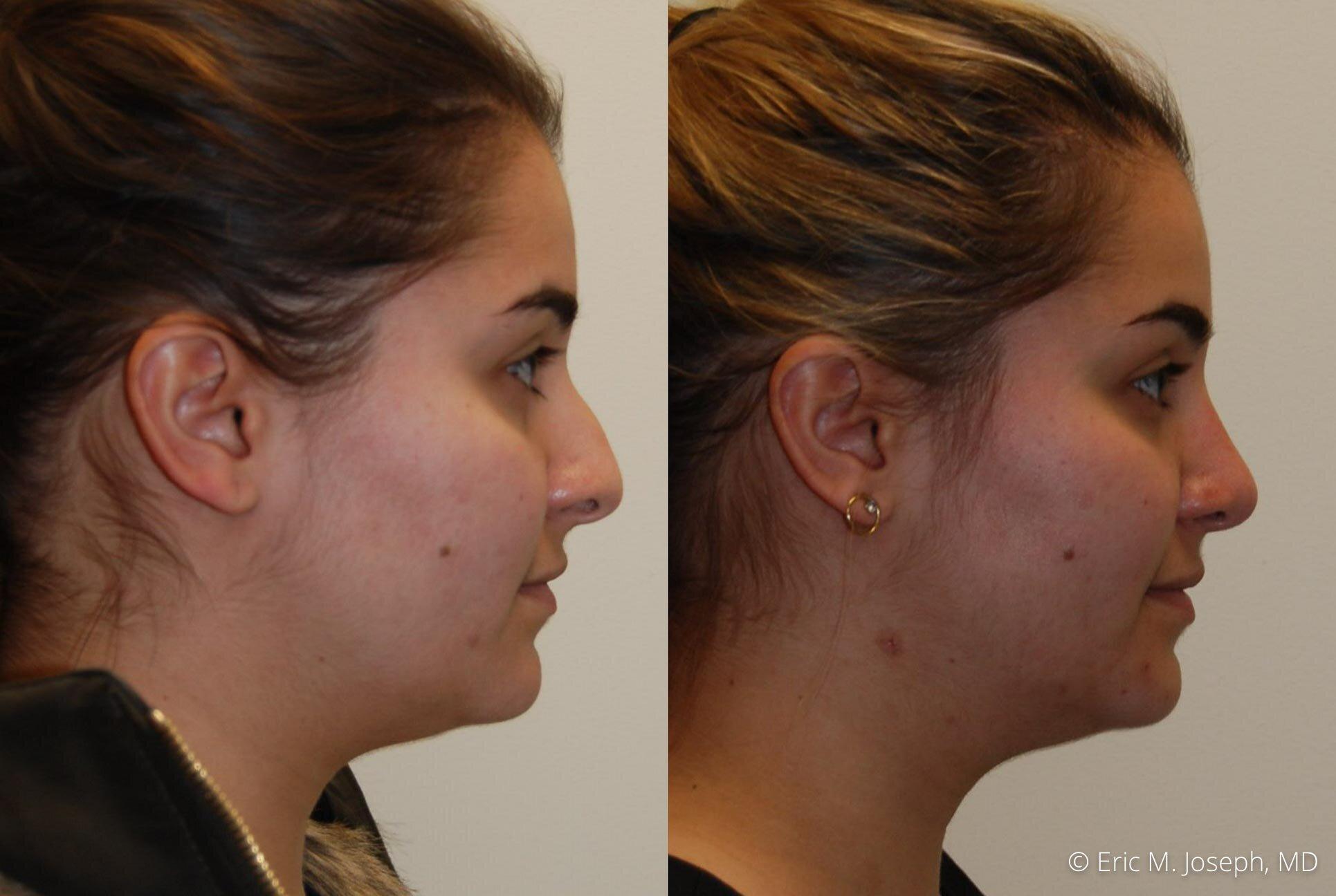 rhinoplasty-nose-job-nyc-nj-0478.jpg