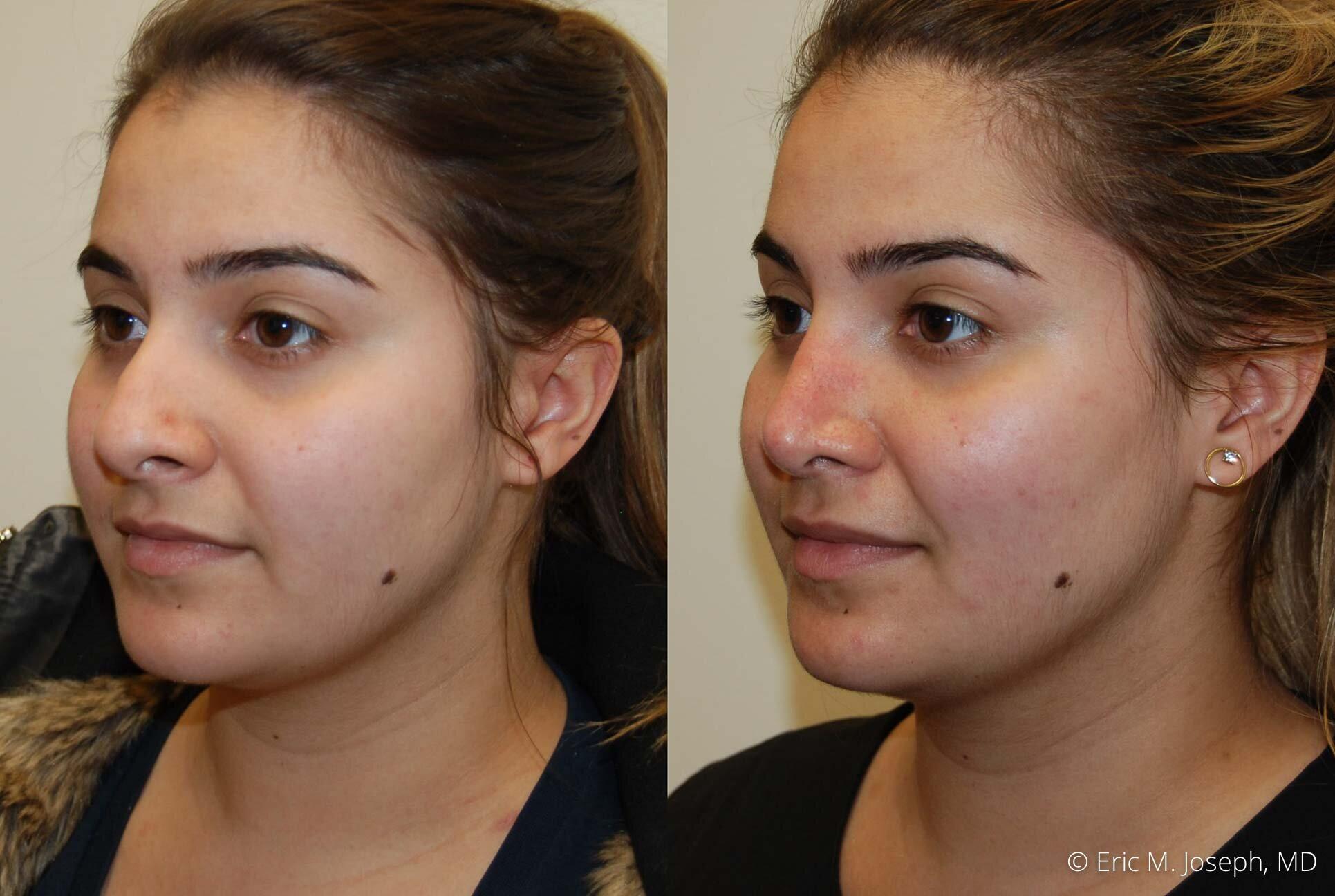 rhinoplasty-nose-job-nyc-nj-0479.jpg