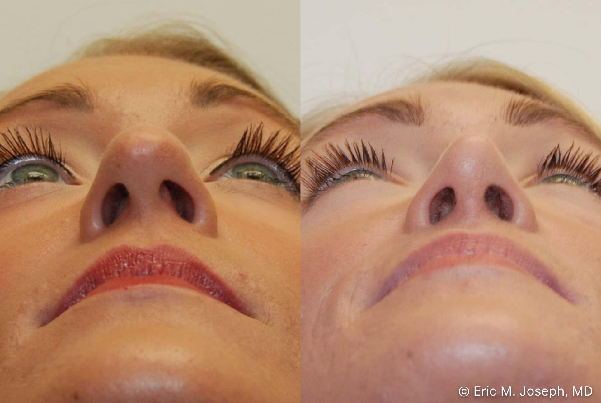 rhinoplasty-nj-nose-job-nyc-0553.jpg