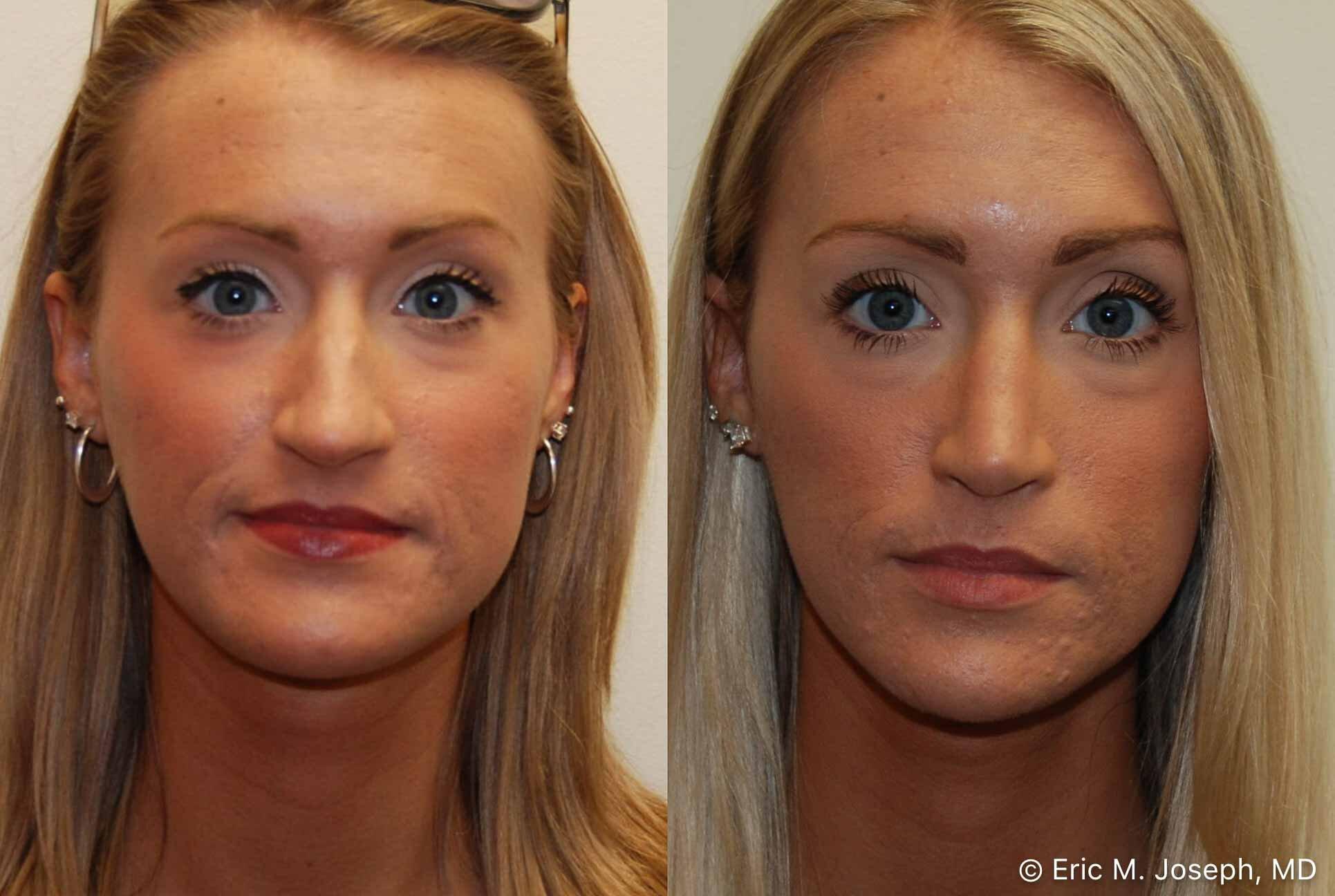 rhinoplasty-nj-nose-job-nyc-0554.jpg