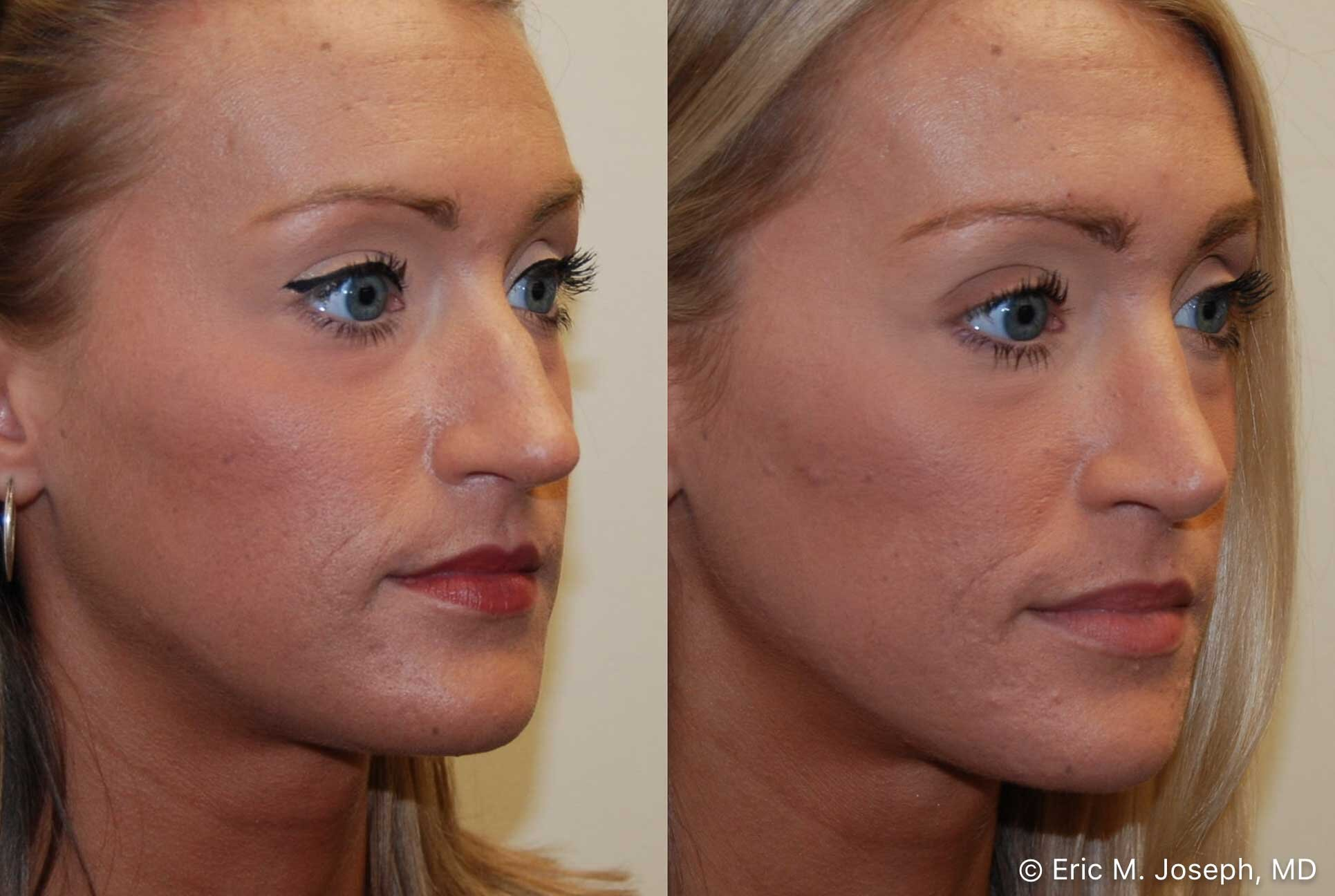 rhinoplasty-nj-nose-job-nyc-0555.jpg