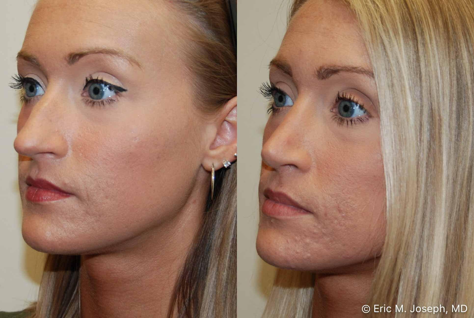 rhinoplasty-nj-nose-job-nyc-0556.jpg