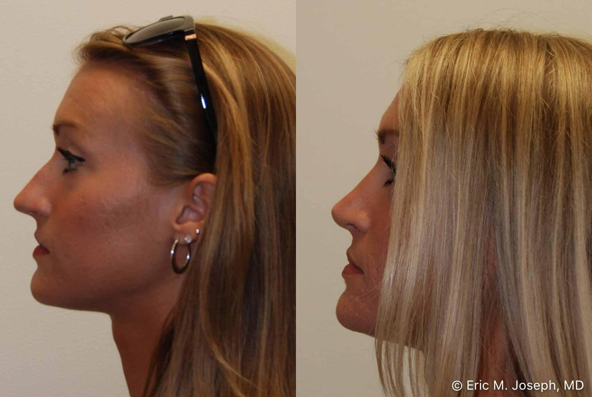 rhinoplasty-nj-nose-job-nyc-0557.jpg