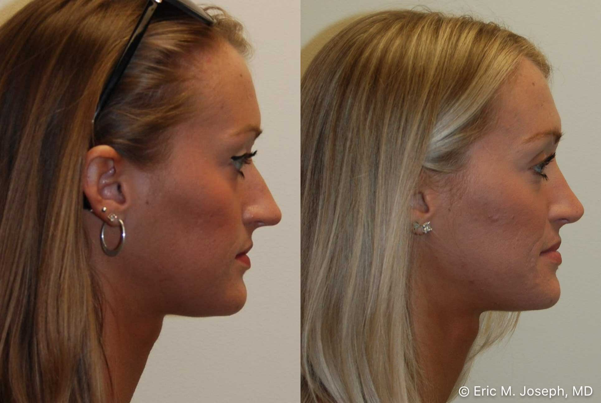 rhinoplasty-nj-nose-job-nyc-0558.jpg