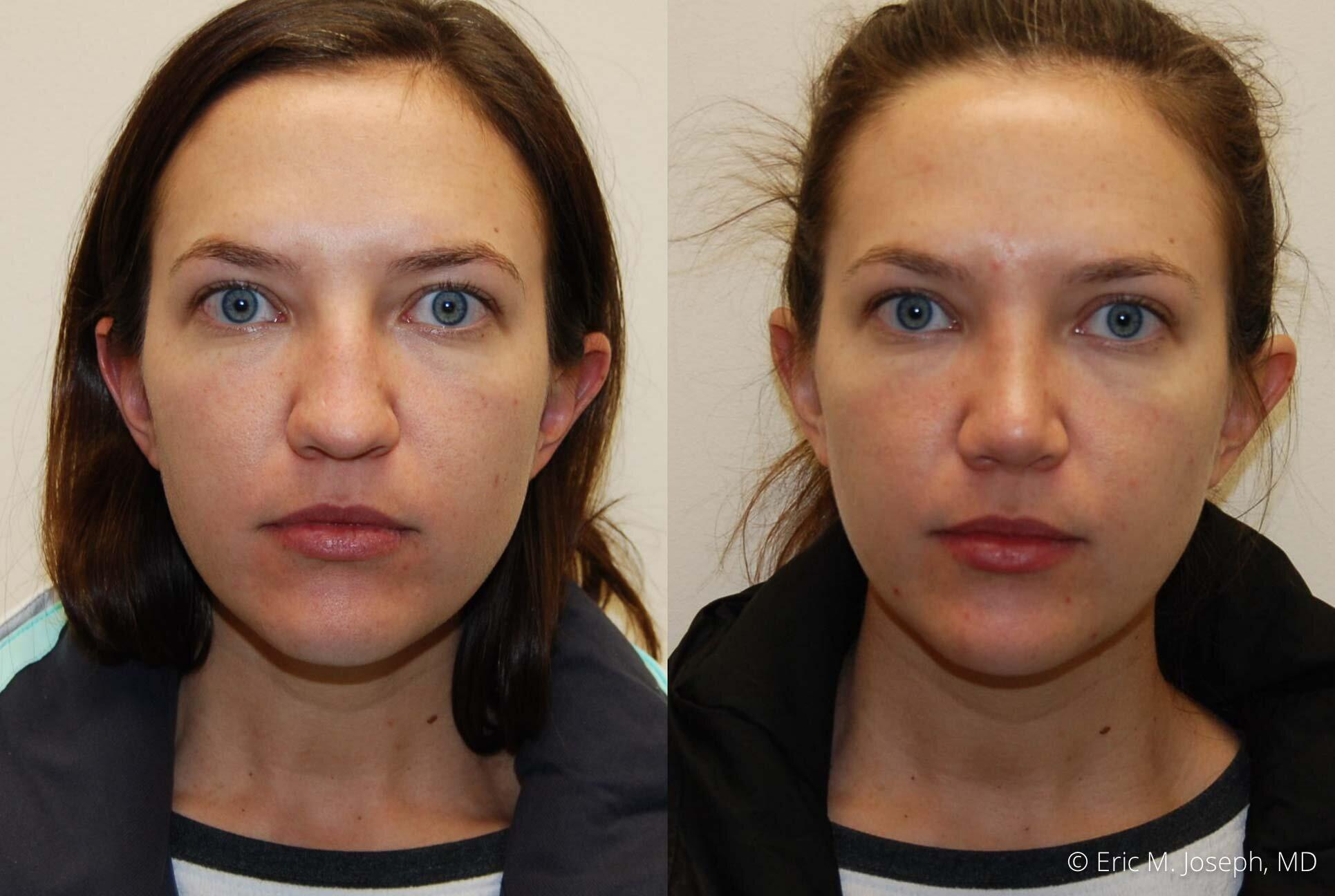 nose-job-rhinoplasty-nj-nyc-0448.jpg
