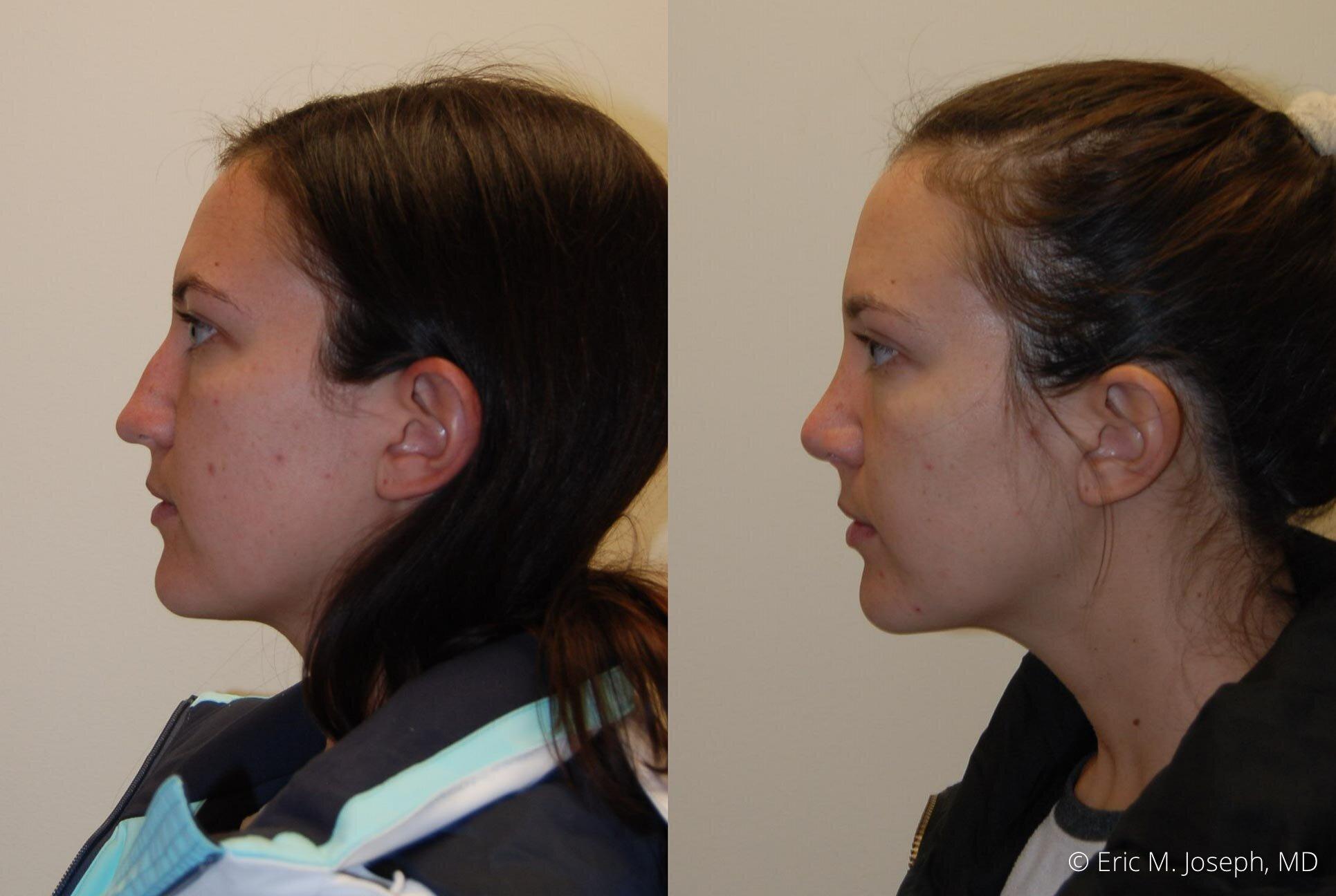 nose-job-rhinoplasty-nj-nyc-0449.jpg