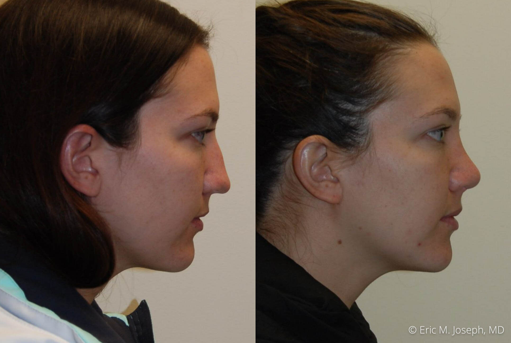 nose-job-rhinoplasty-nj-nyc-0450.jpg