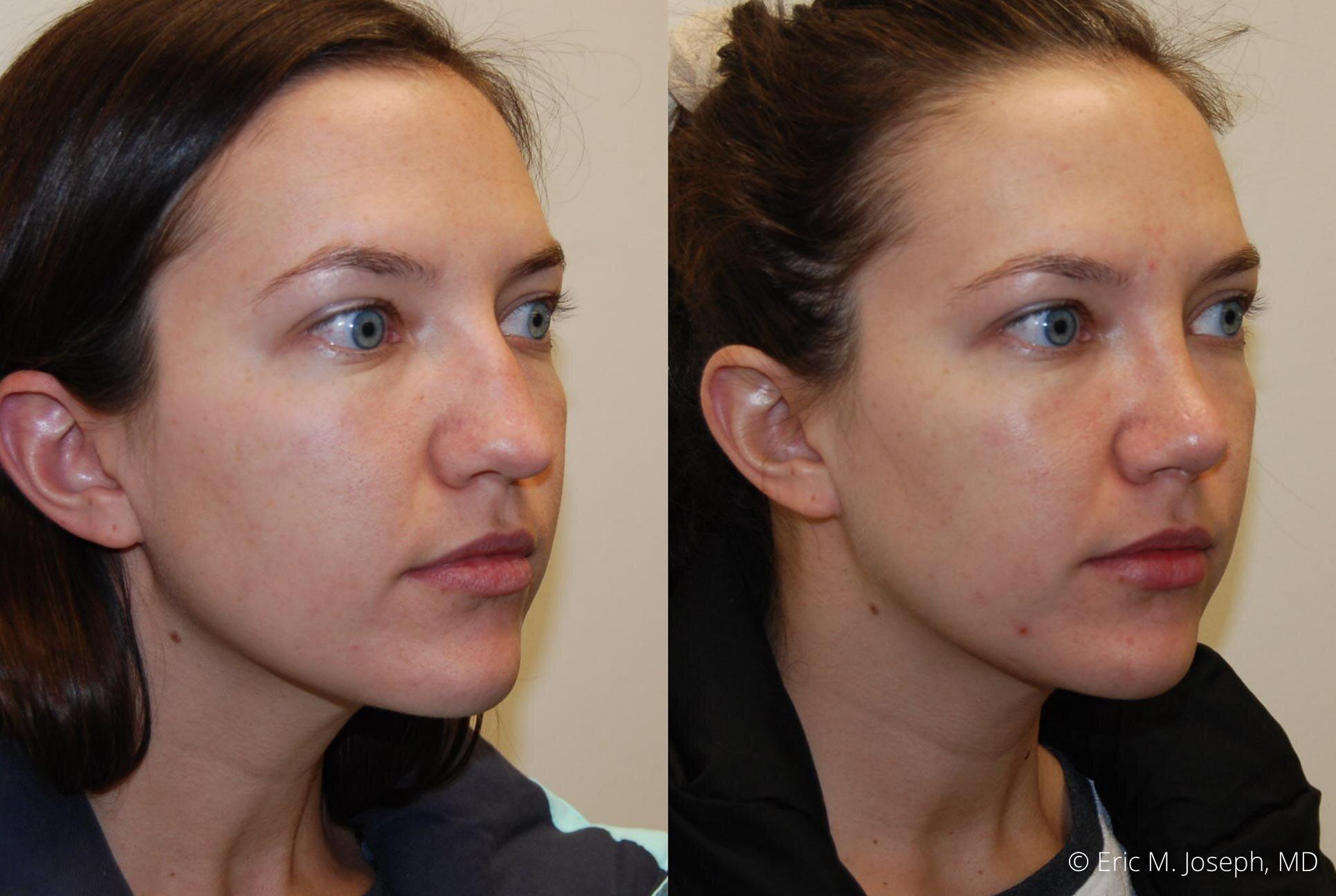 nose-job-rhinoplasty-nj-nyc-0453.jpg