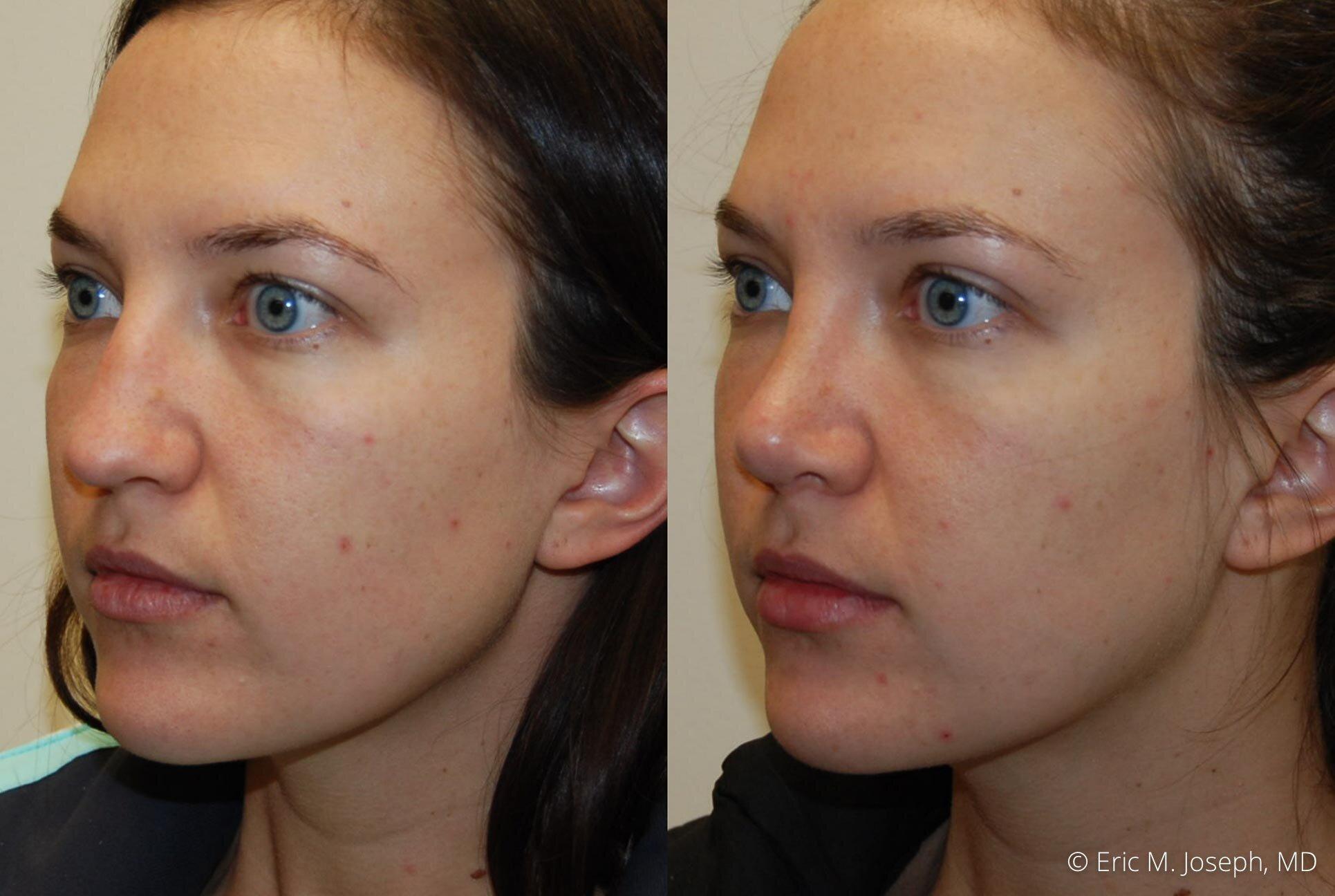 nose-job-rhinoplasty-nj-nyc-0454.jpg