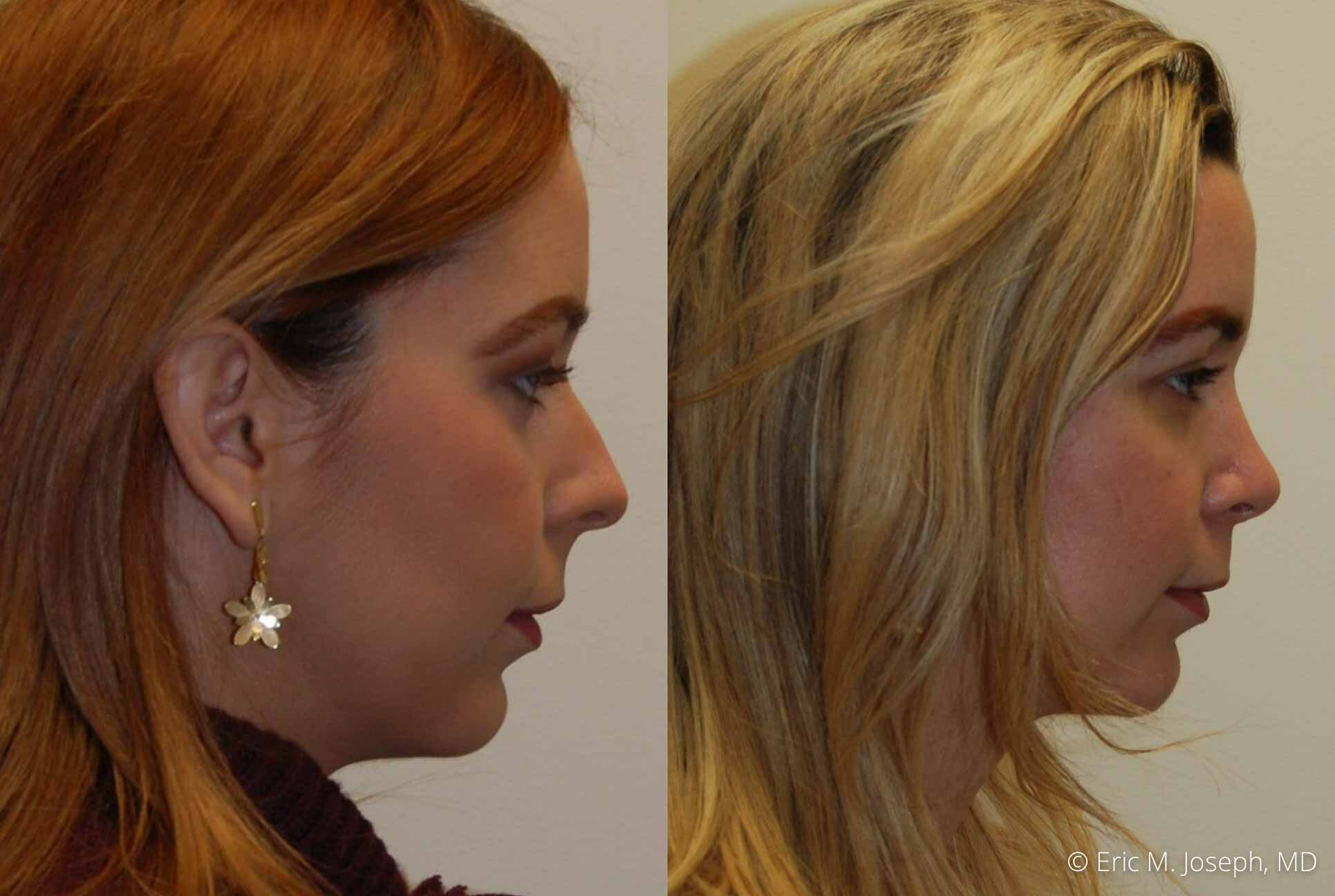 rhinoplasty-nj-nose-job-0545.jpg