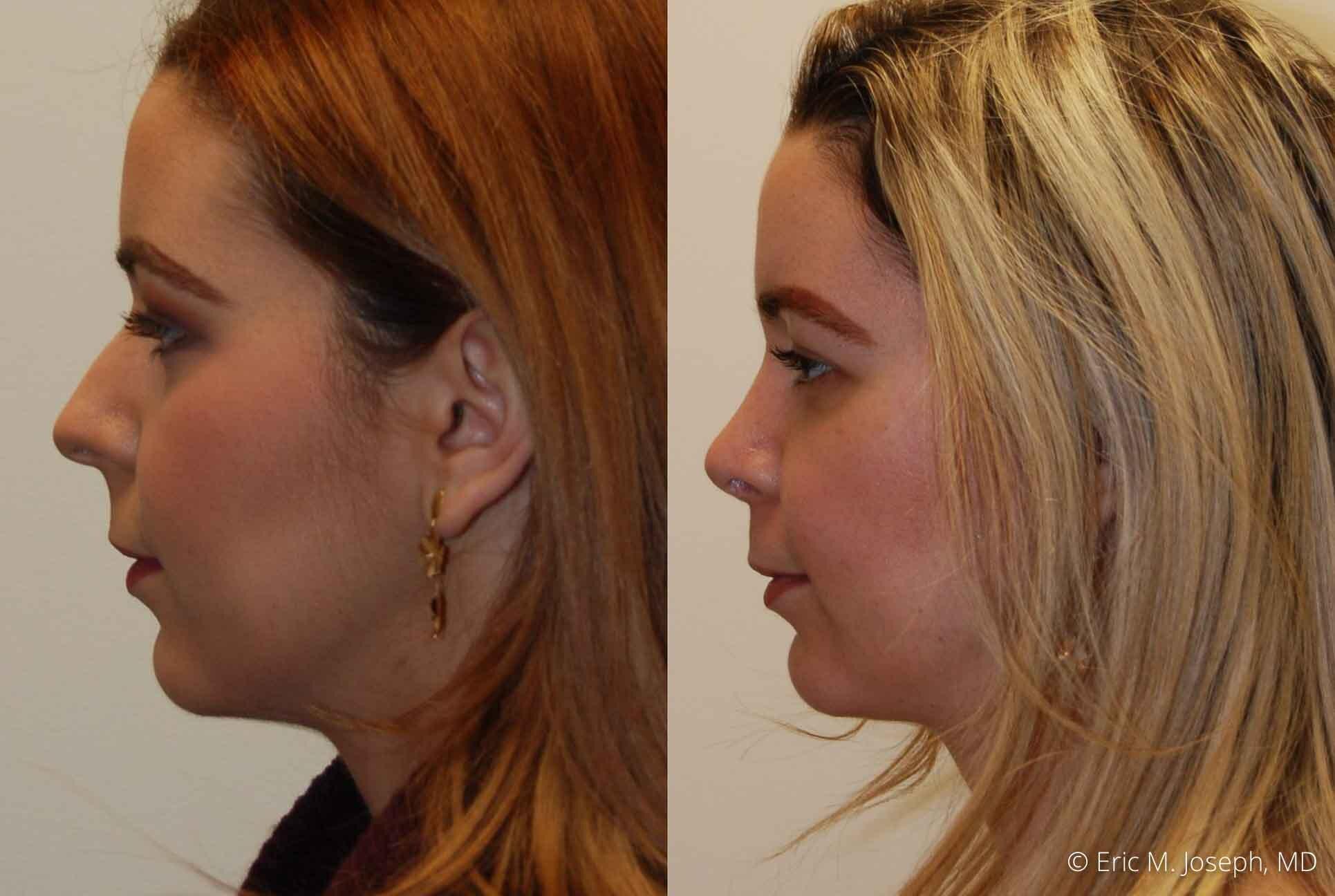rhinoplasty-nj-nose-job-0546.jpg