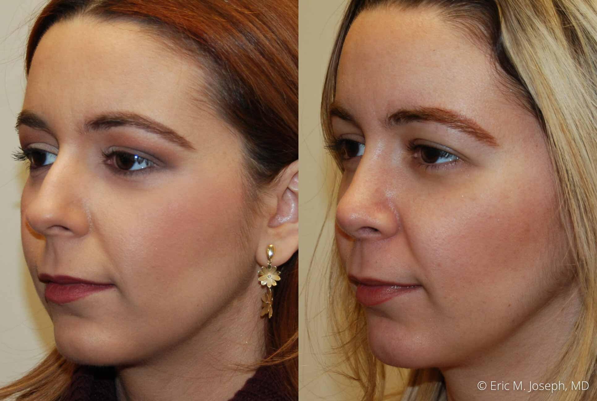 rhinoplasty-nj-nose-job-0547.jpg