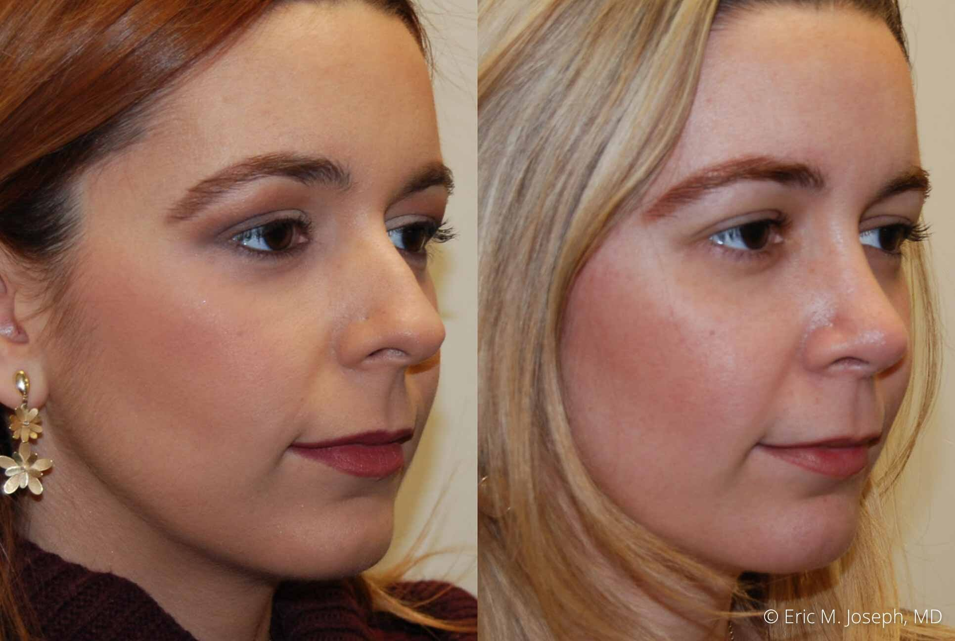 rhinoplasty-nj-nose-job-0548.jpg