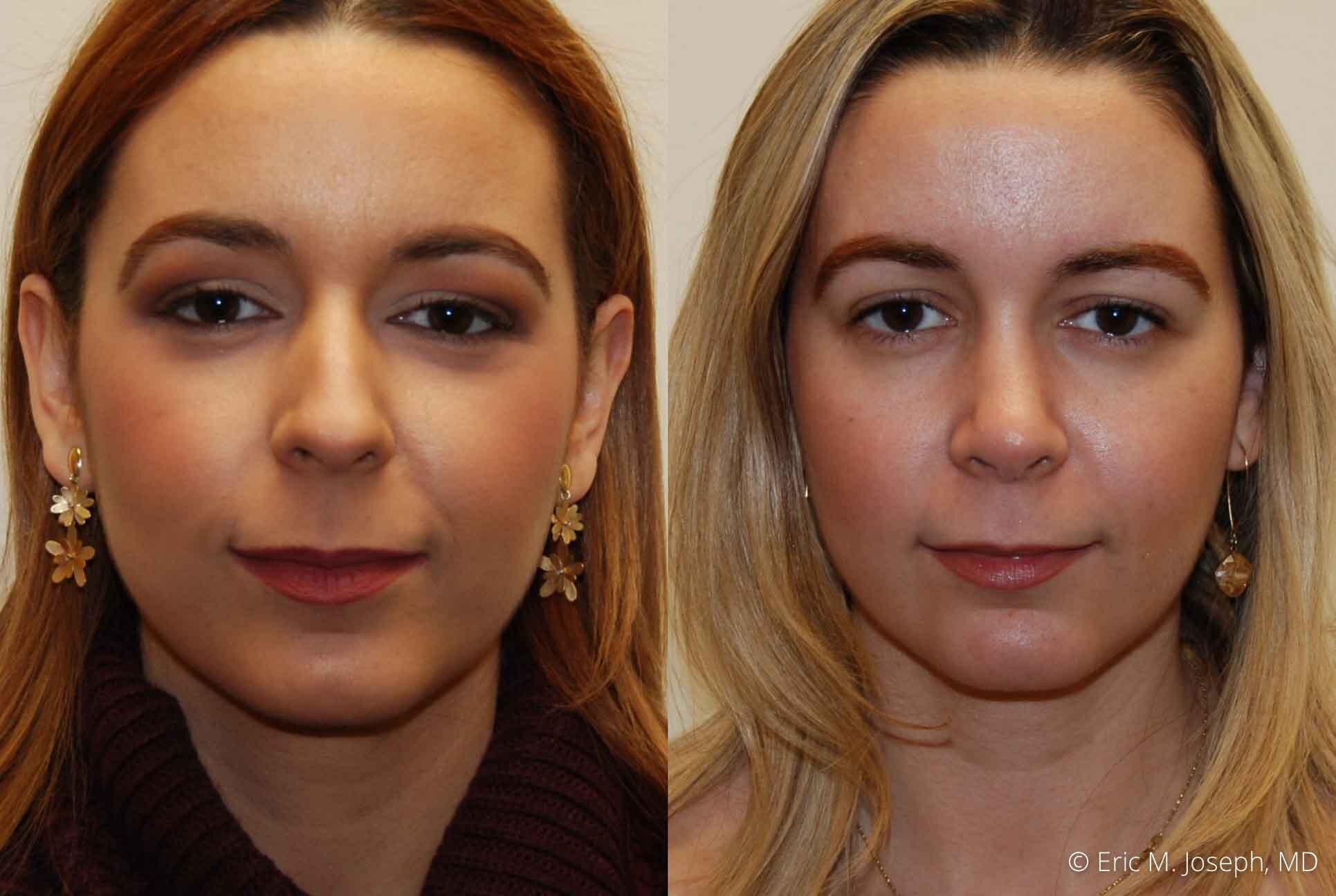 rhinoplasty-nj-nose-job-0549.jpg