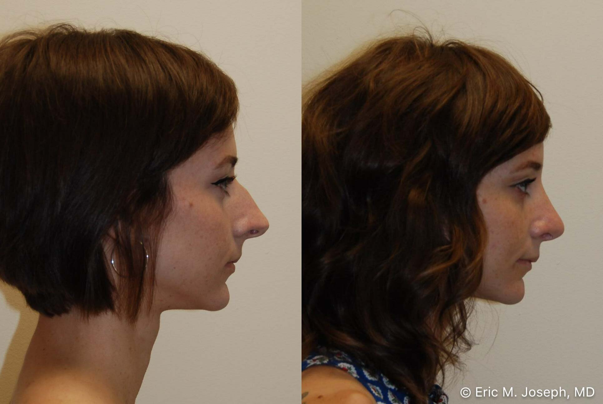 rhinoplasty-nj-nose-job-new-jersey-0589.jpg
