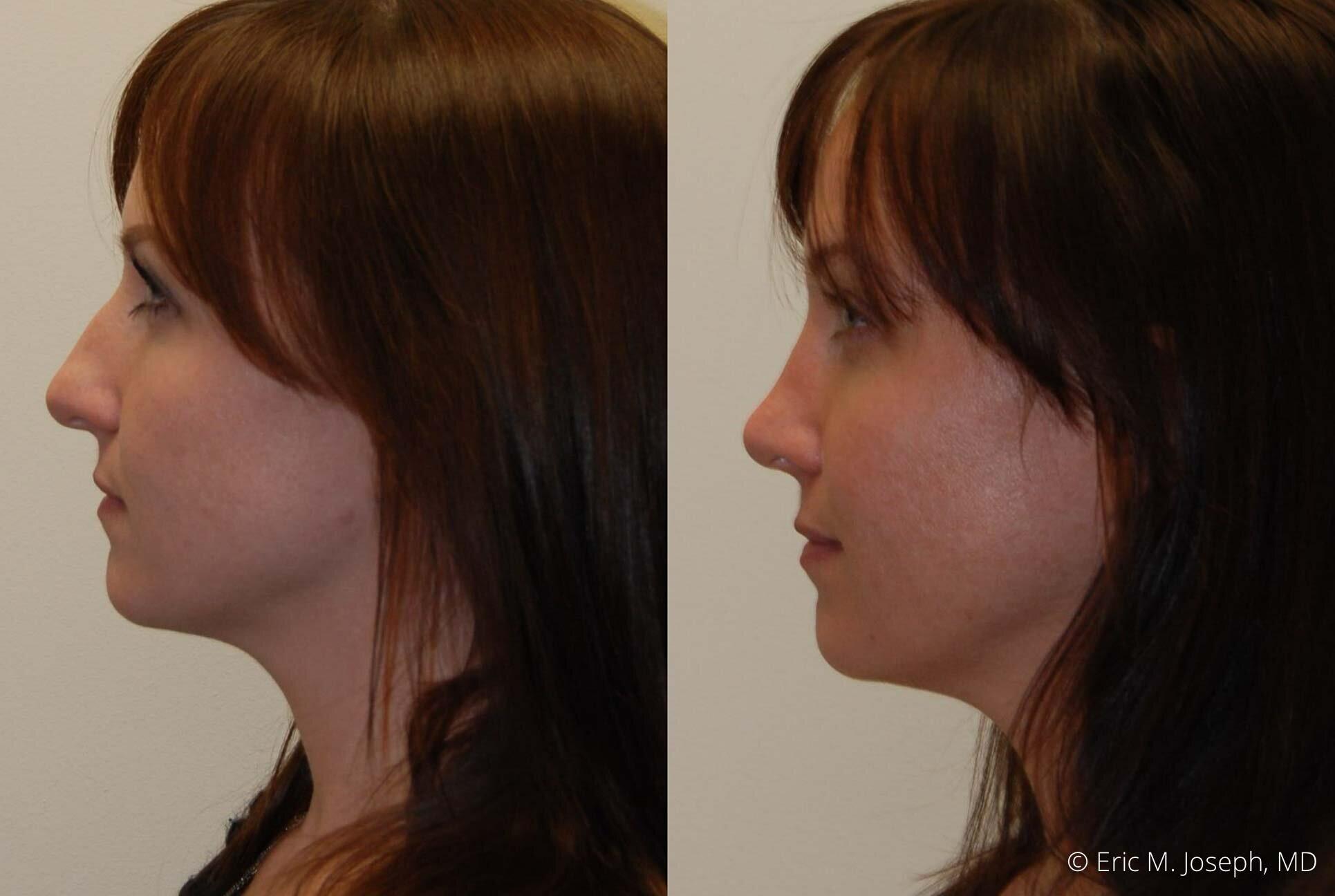 rhinoplasty-nj-nose-job-nyc-0550.jpg