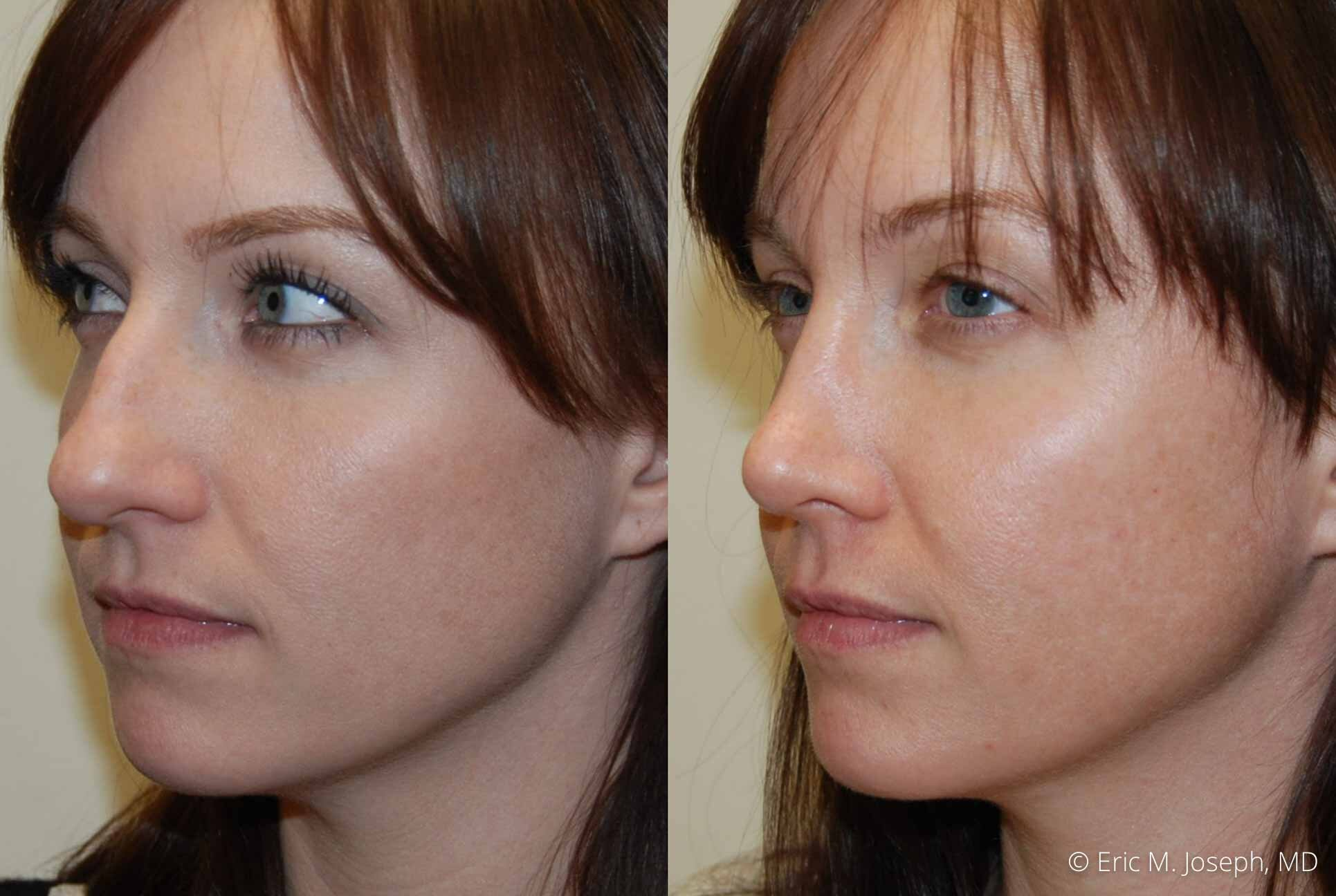 rhinoplasty-nj-nose-job-nyc-0551.jpg