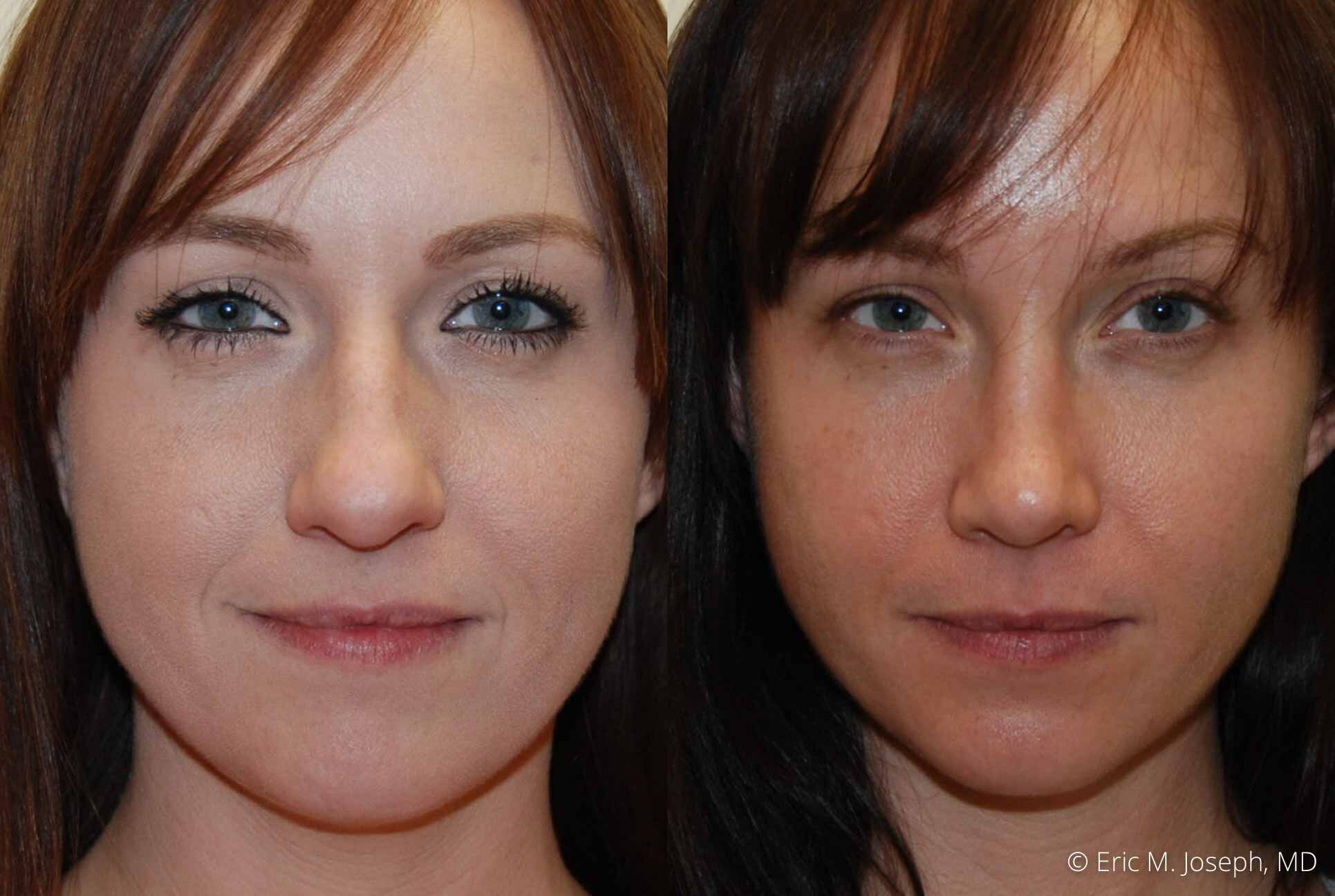 rhinoplasty-nj-nose-job-nyc-0552.jpg