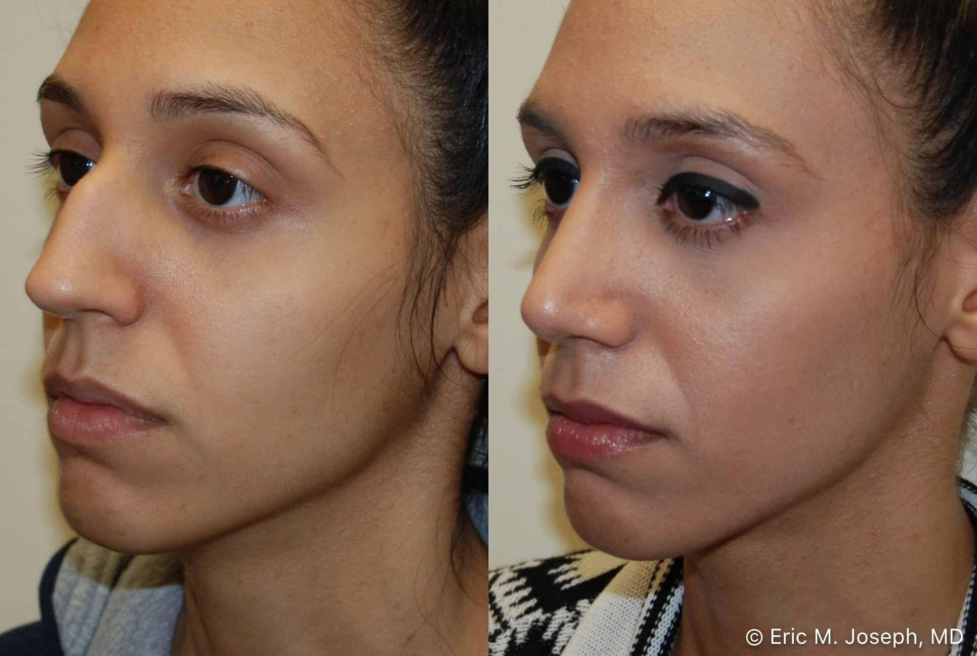 rhinoplasty-nj-nose-job-new-jersey-0567.jpg