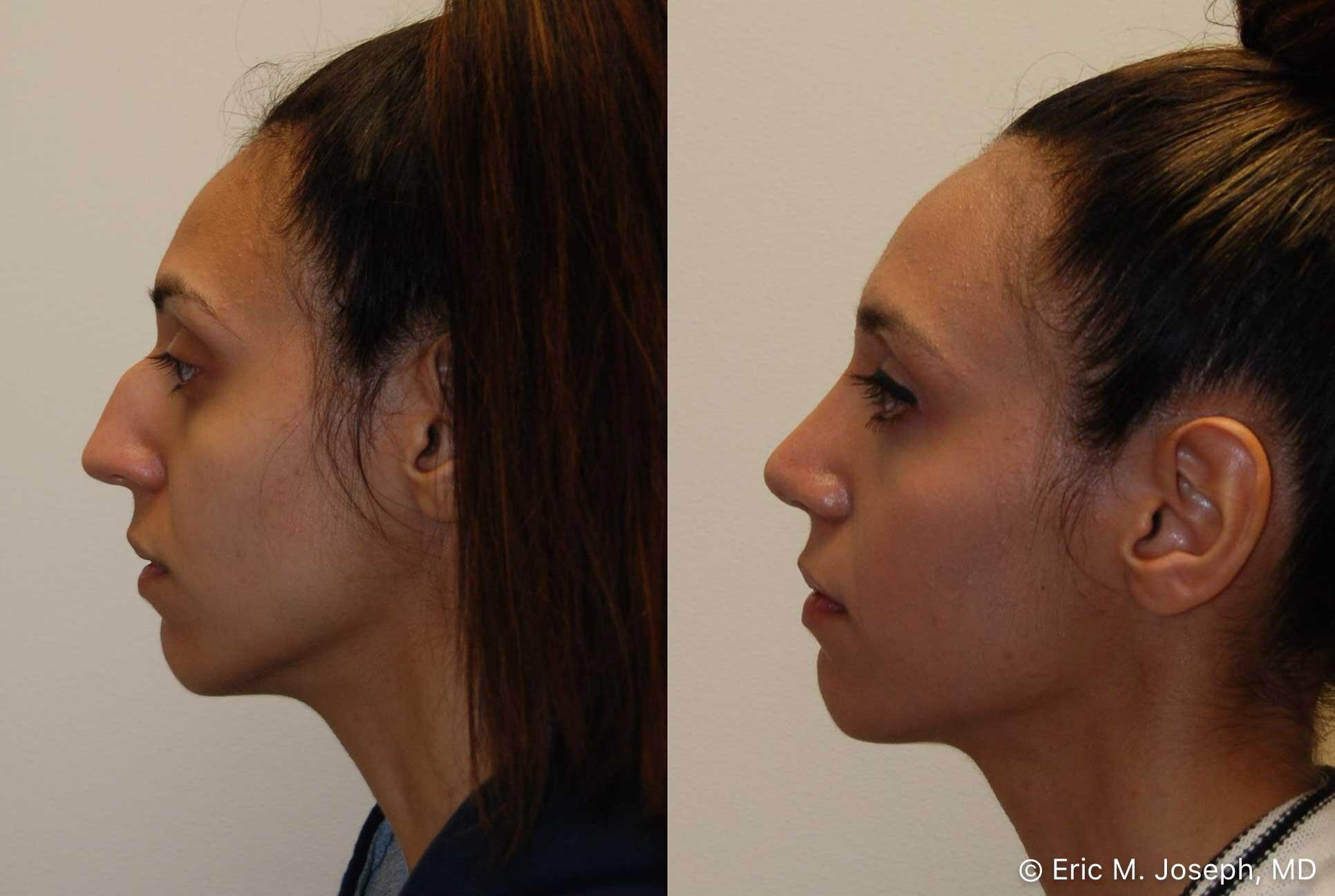 rhinoplasty-nj-nose-job-new-jersey-0568.jpg