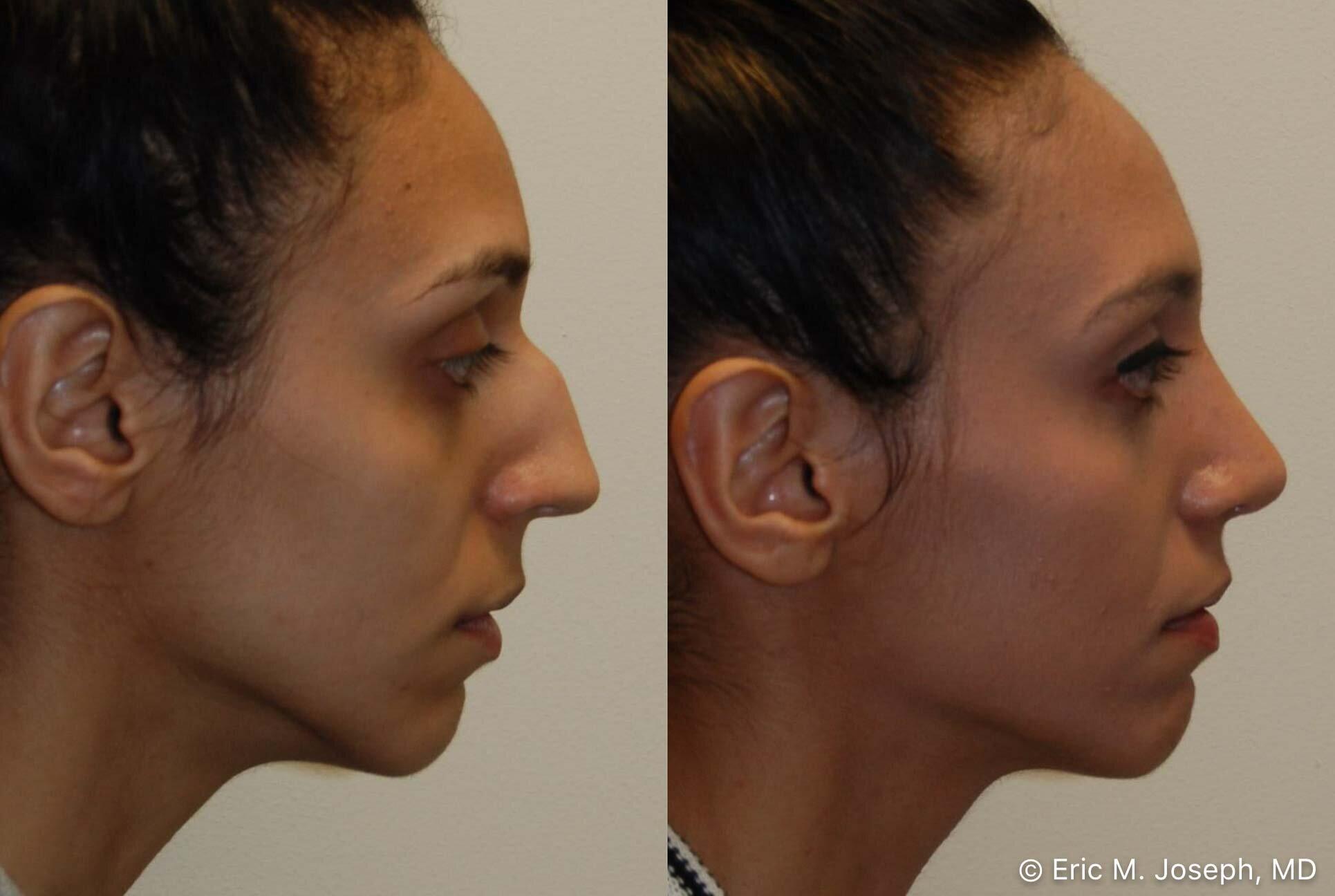 rhinoplasty-nj-nose-job-new-jersey-0569.jpg