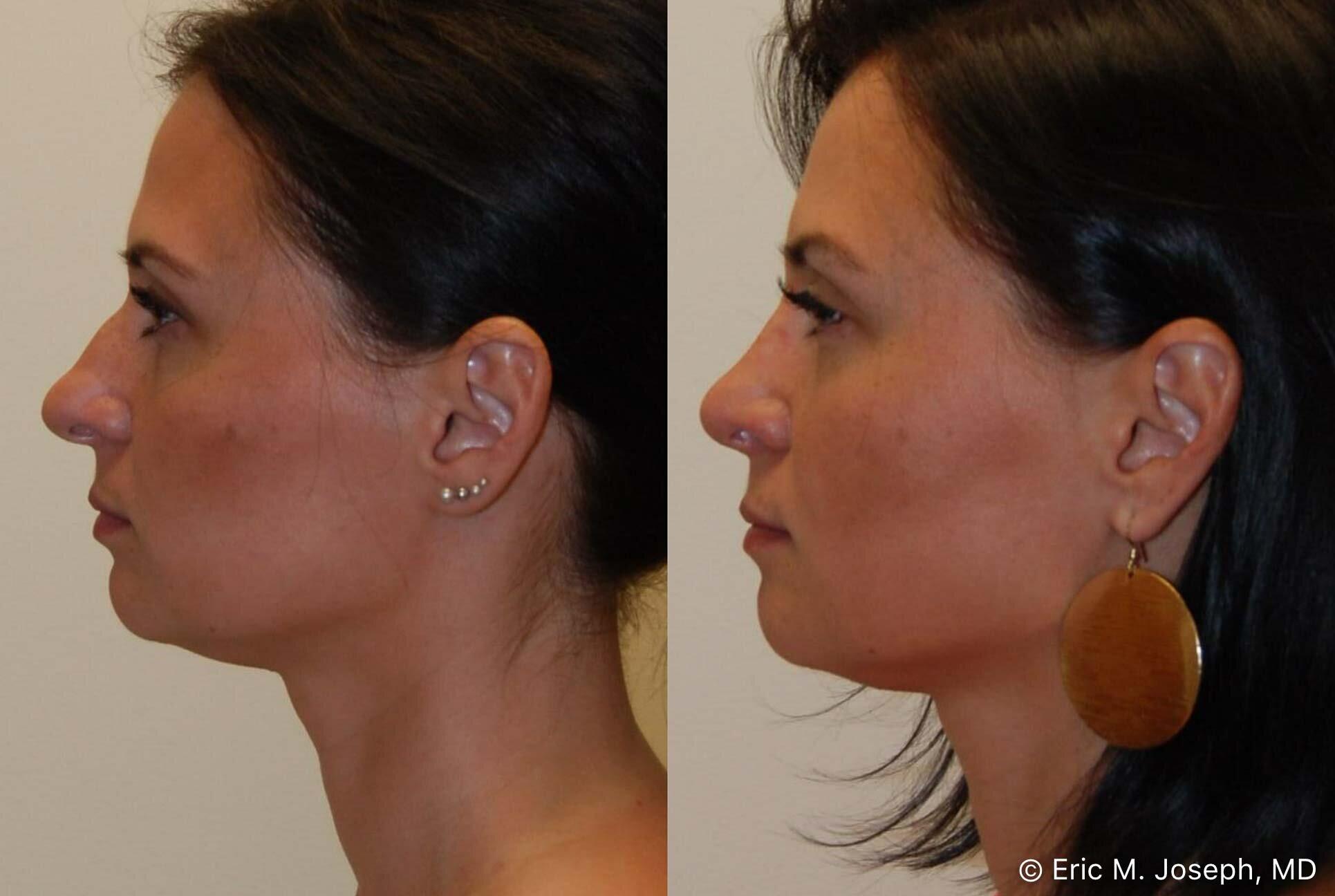 rhinoplasty-nj-nose-job-new-jersey-0583.jpg