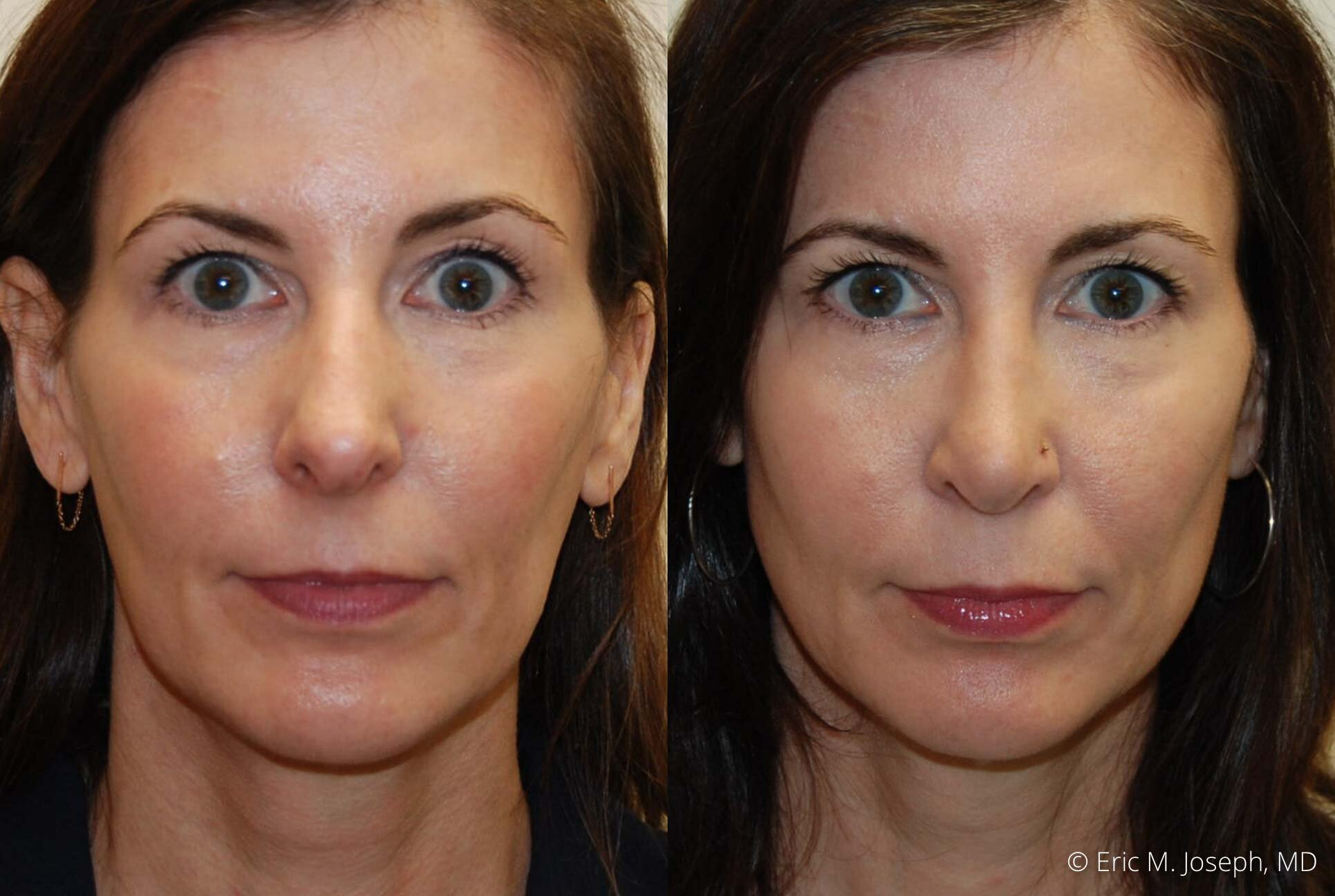 rhinoplasty-nj-nose-job-specialist-0505.jpg