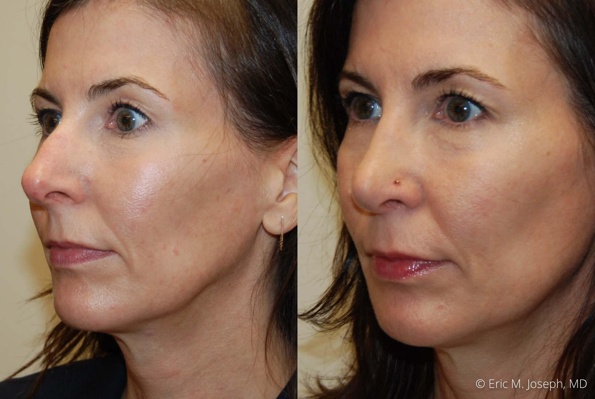 rhinoplasty-nj-nose-job-specialist-0506.jpg