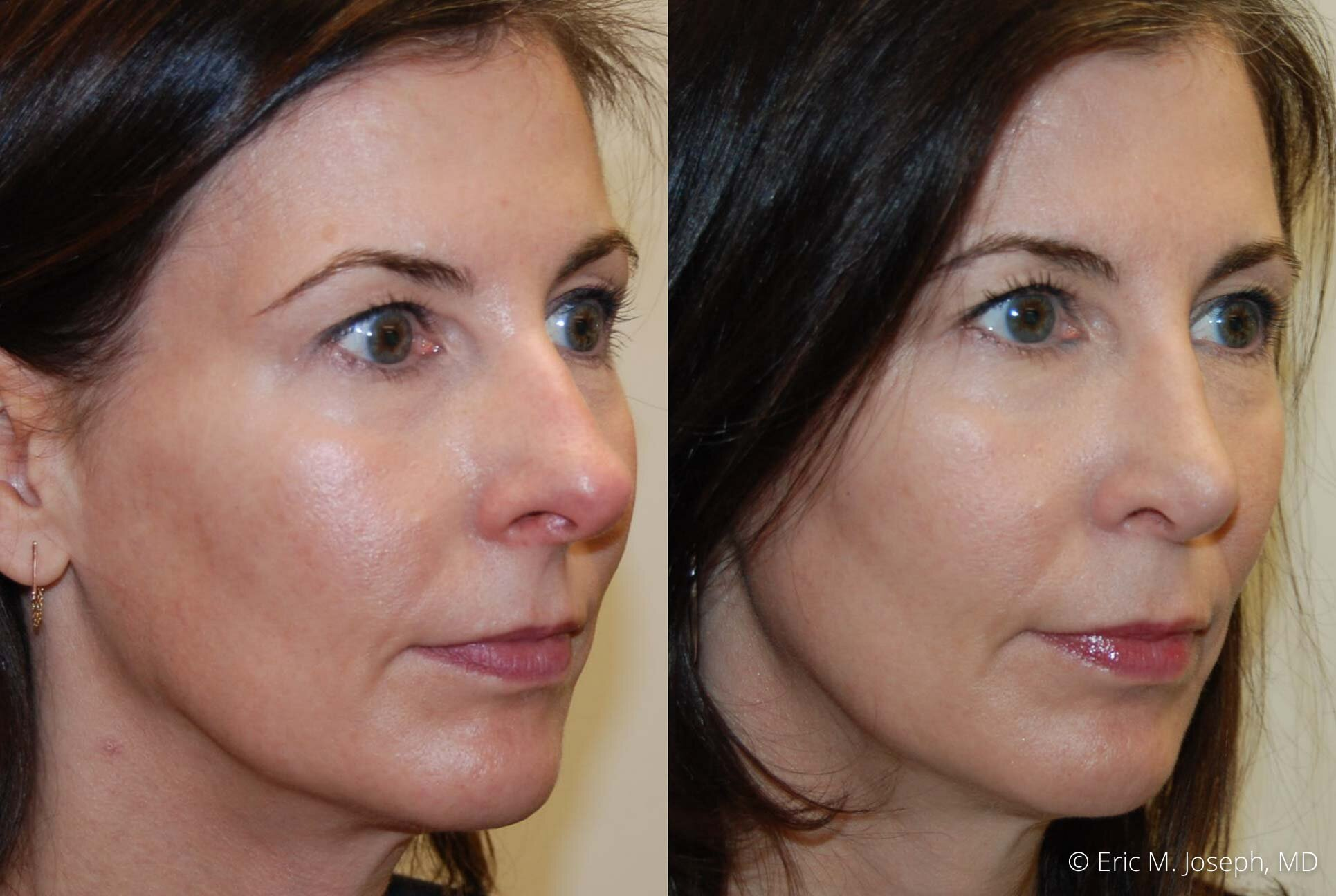 rhinoplasty-nj-nose-job-specialist-0507.jpg