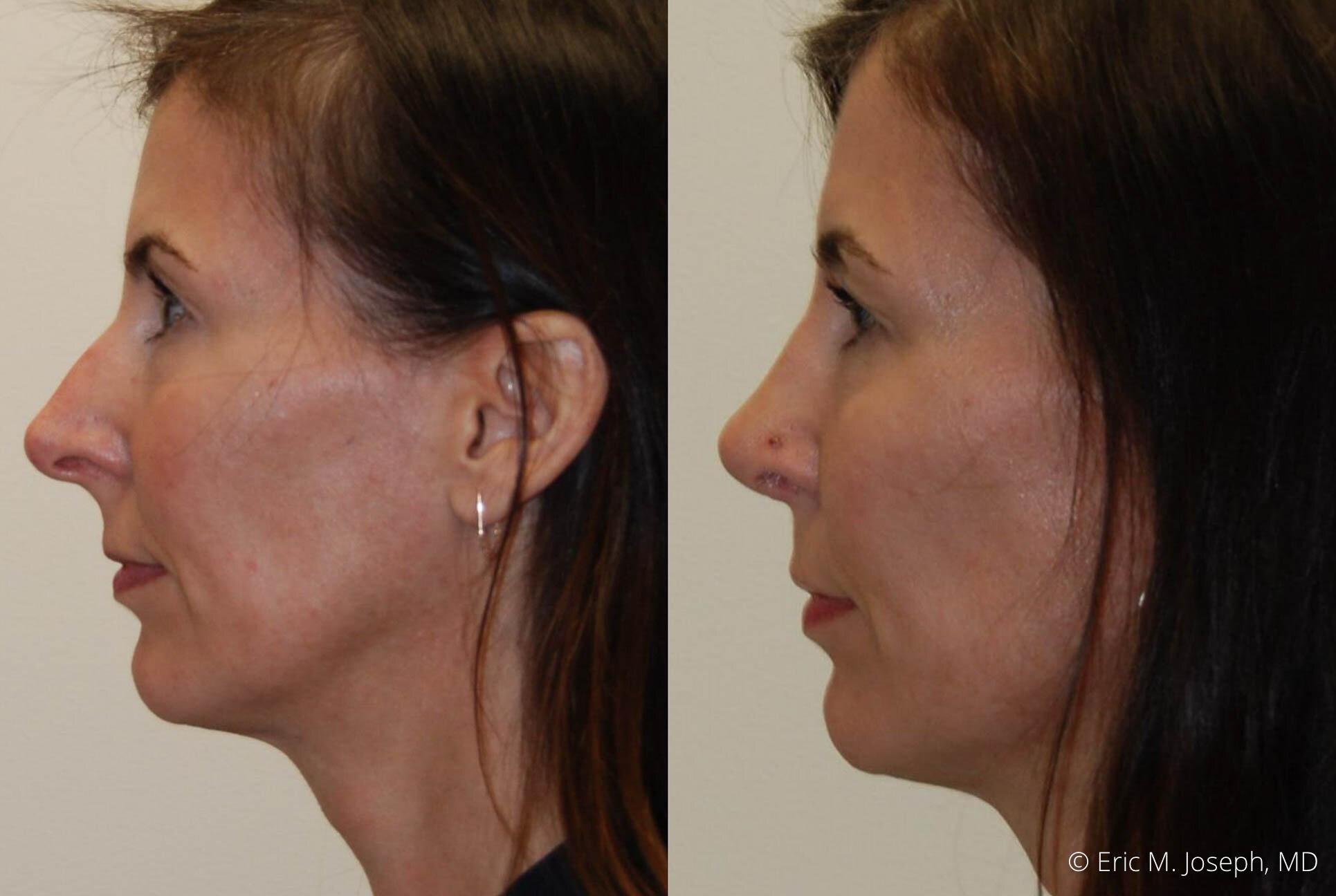 rhinoplasty-nj-nose-job-specialist-0508.jpg