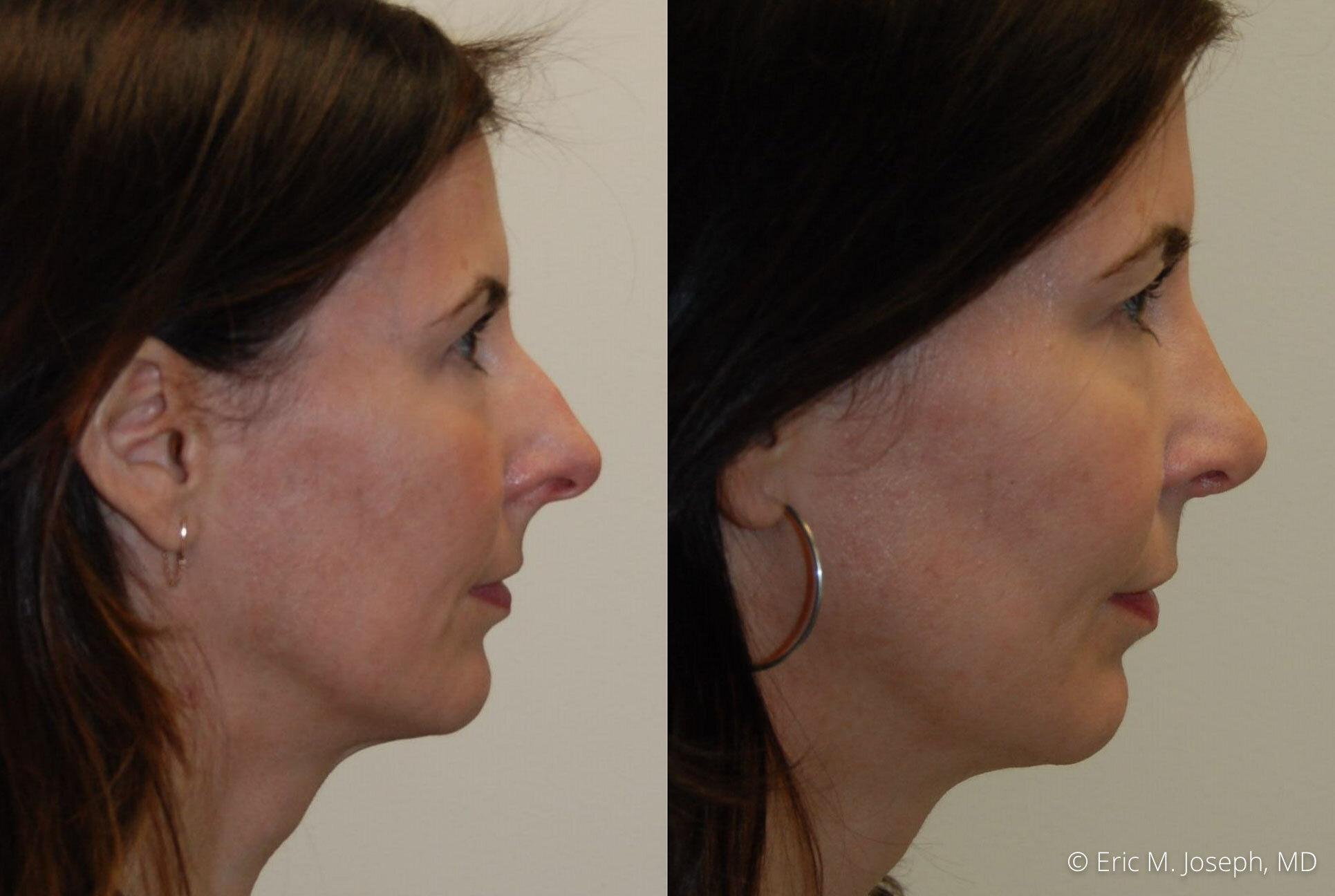 rhinoplasty-nj-nose-job-specialist-0509.jpg