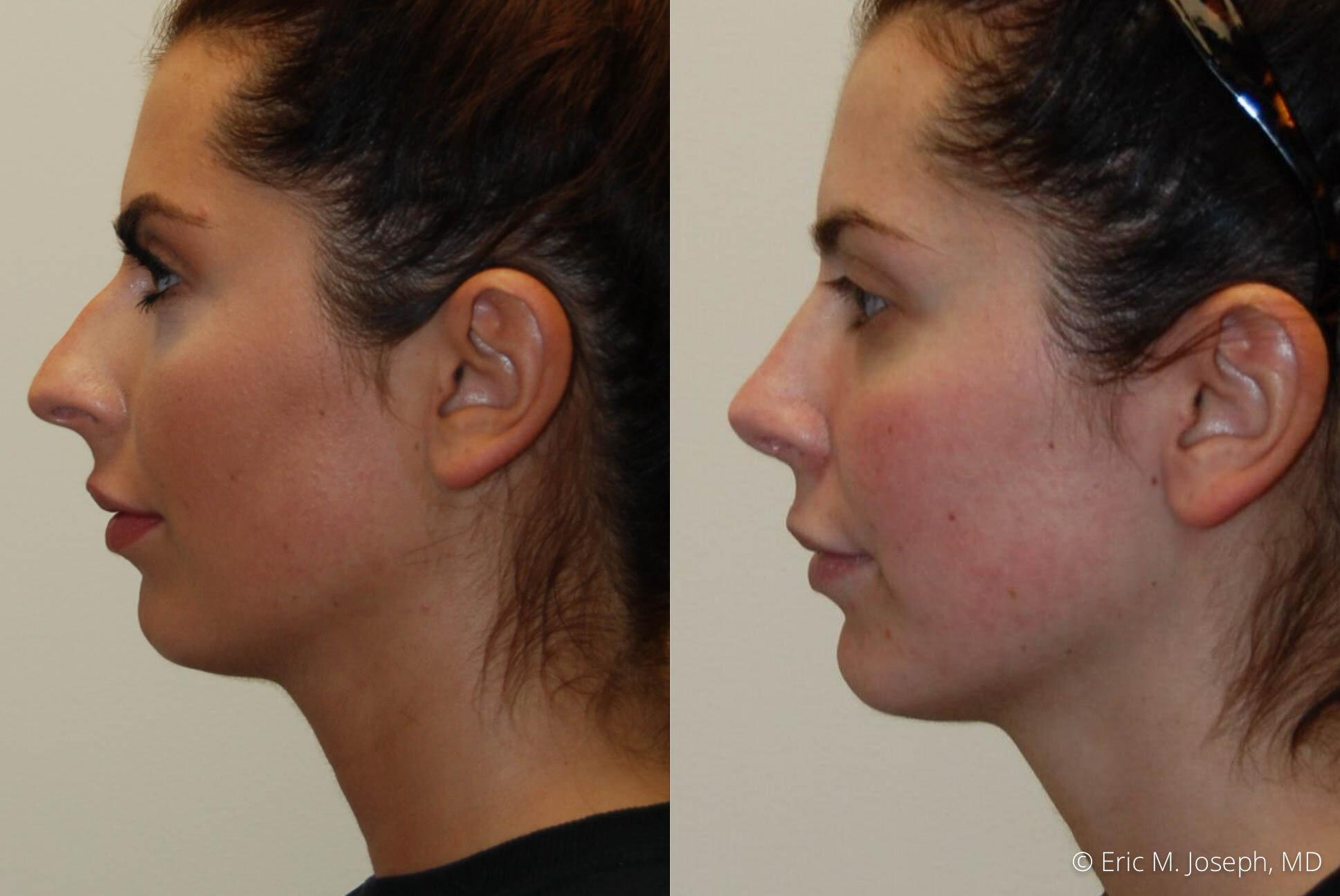 rhinoplasty-nj-nyc-nose-job-0374.jpg