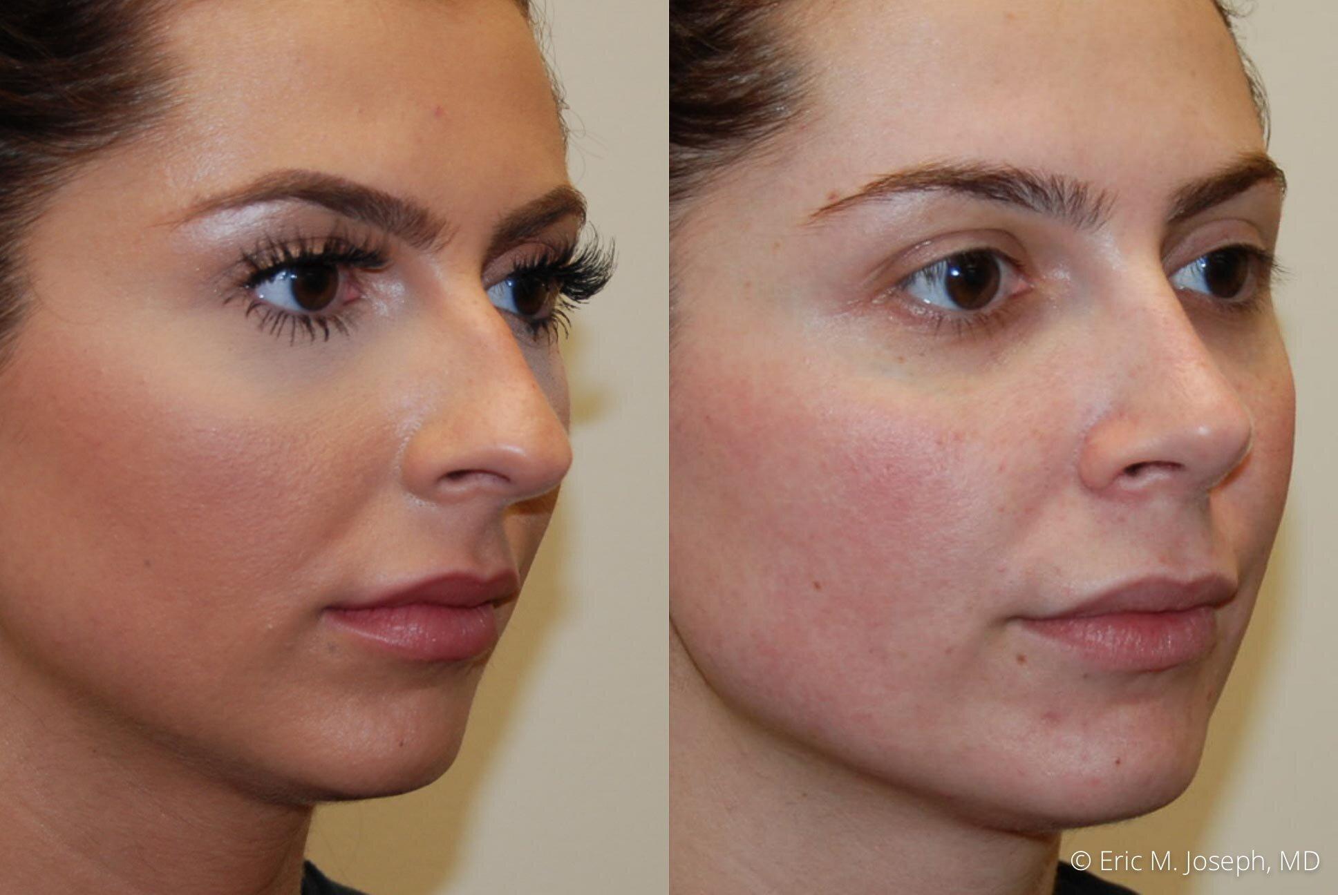 rhinoplasty-nj-nyc-nose-job-0376.jpg
