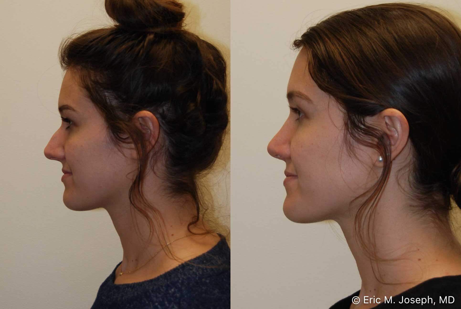 rhinoplasty-nj-nose-job-new-jersey-0573.jpg