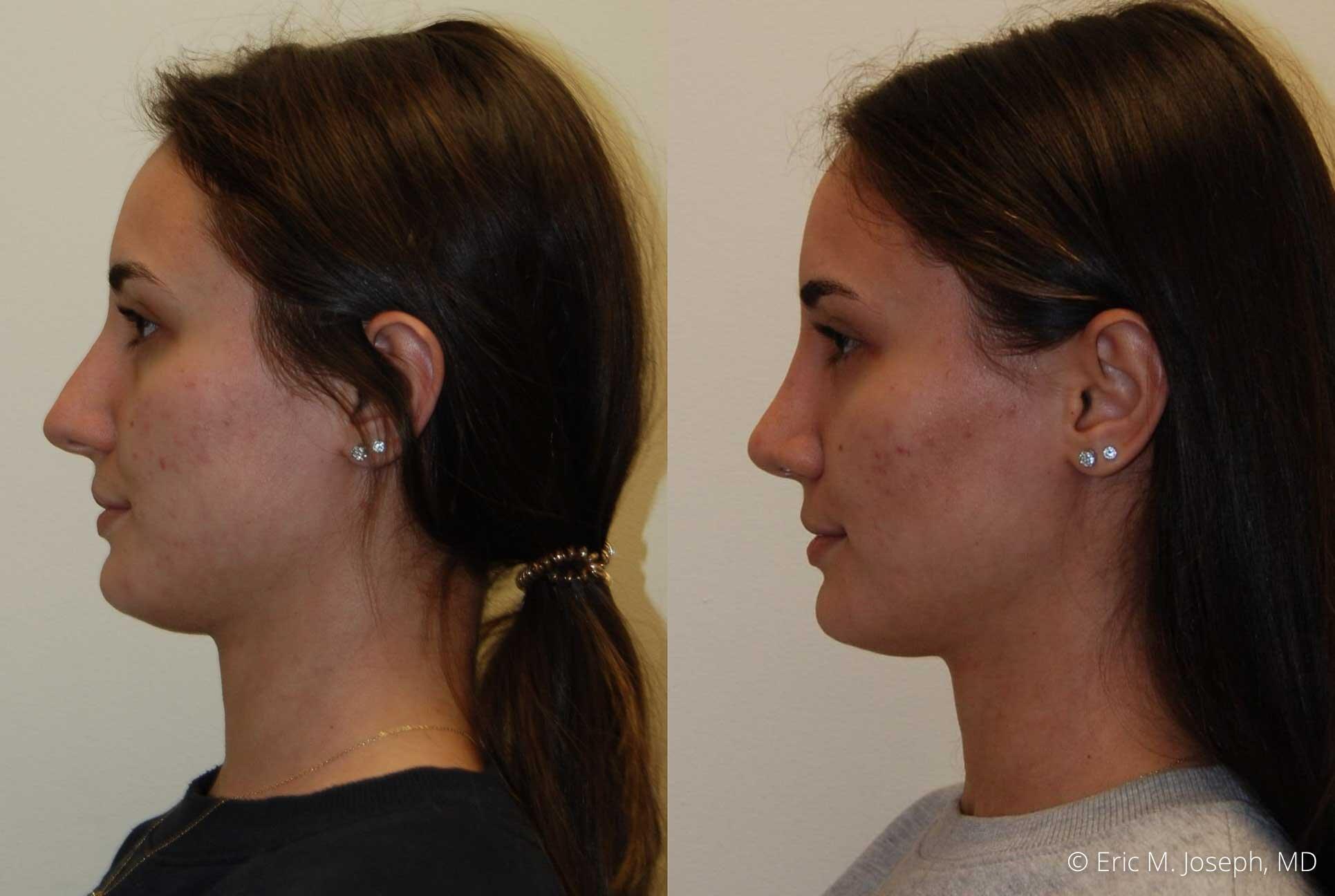 rhinoplasty-nj-nose-job-new-jersey-0593.jpg