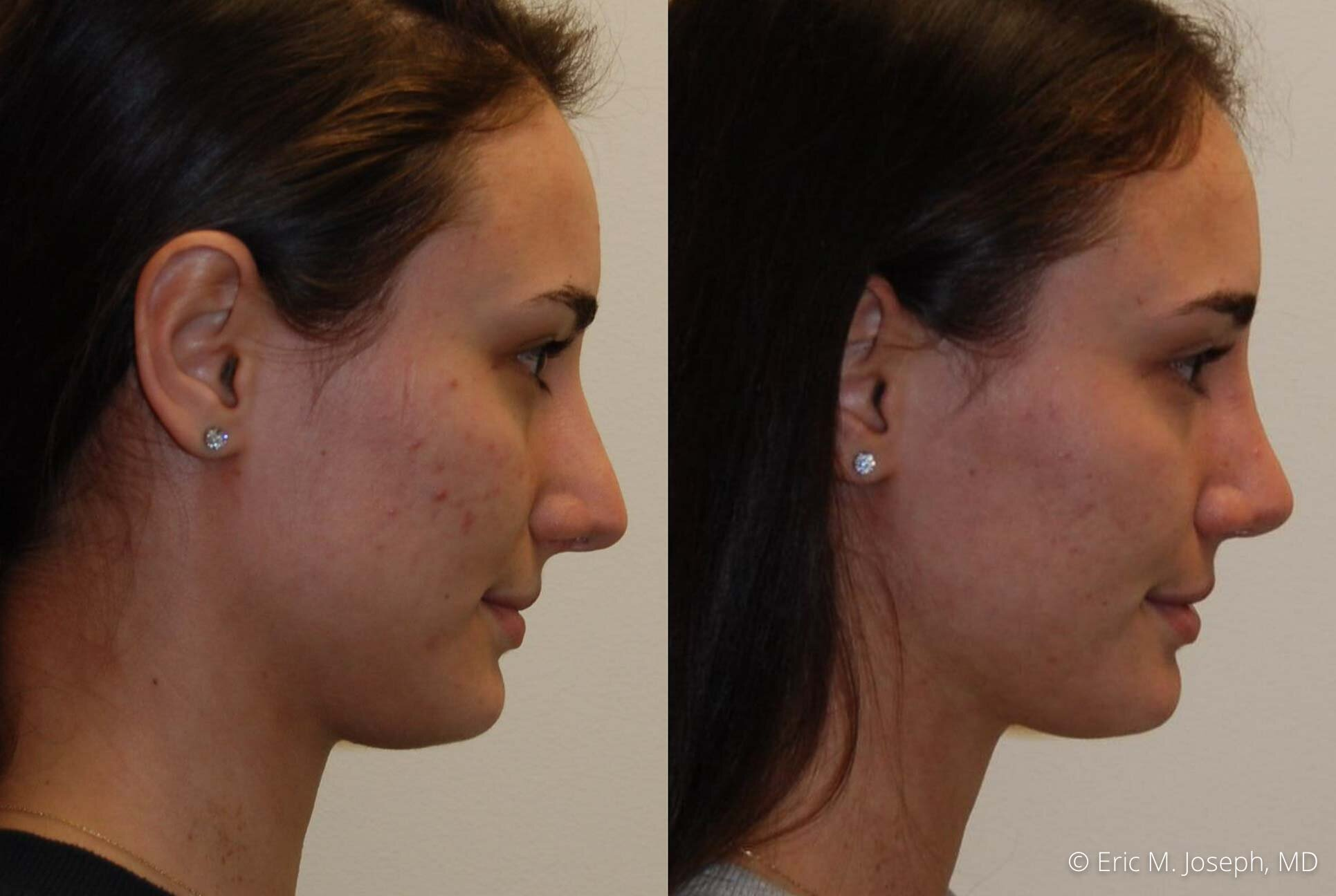 rhinoplasty-nj-nose-job-new-jersey-0594.jpg