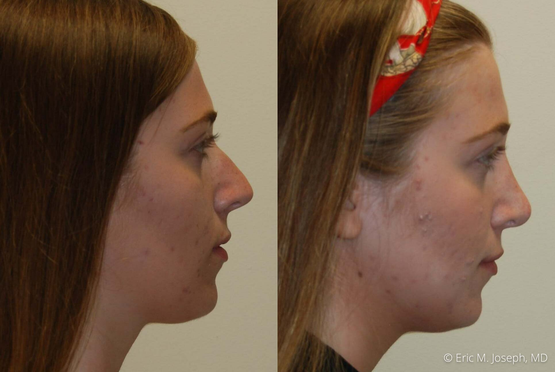 rhinoplasty-nj-nose-job-new-jersey-0600.jpg