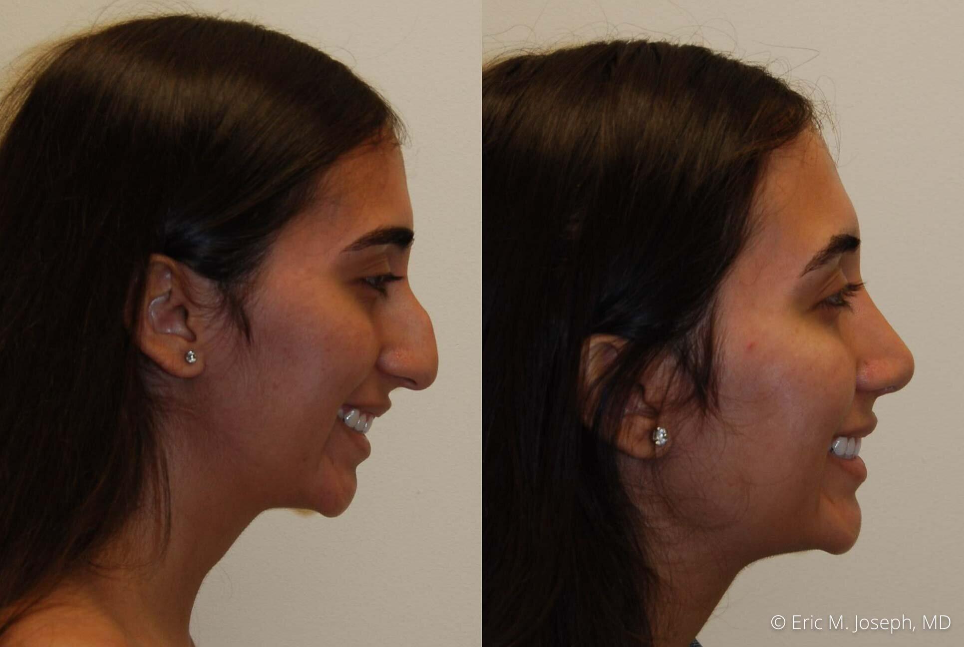 rhinoplasty-nj-nose-job-new-jersey-0607.jpg